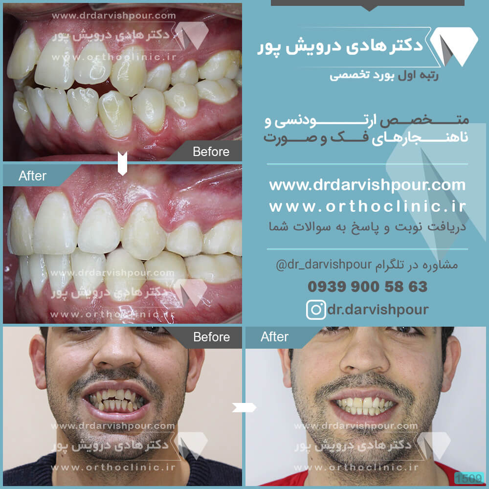 1509orthodontics-before-after-photo