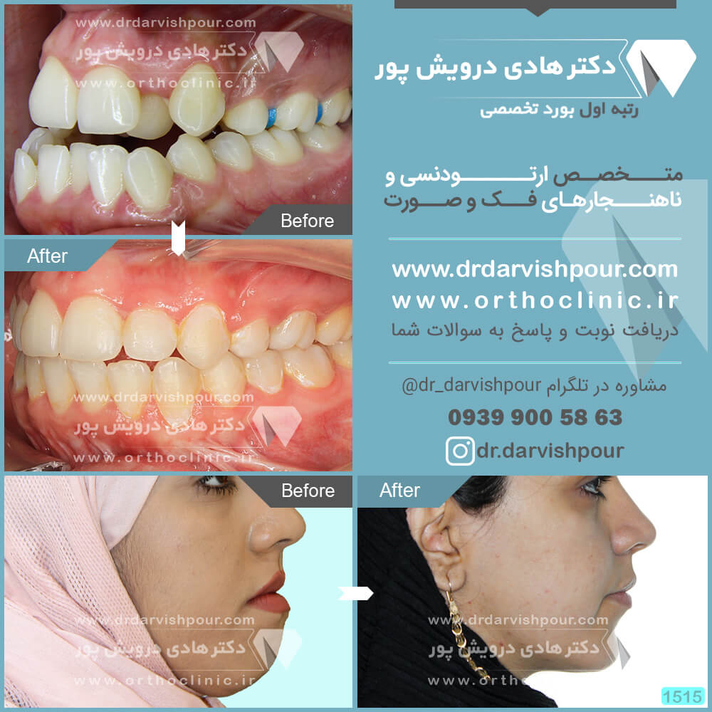 1515orthodontics-before-after-photo