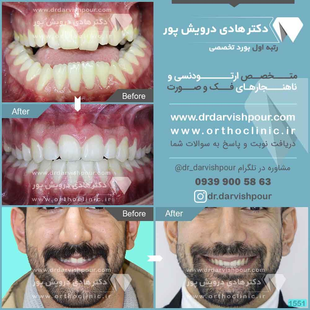1551orthodontics-before-after-photo