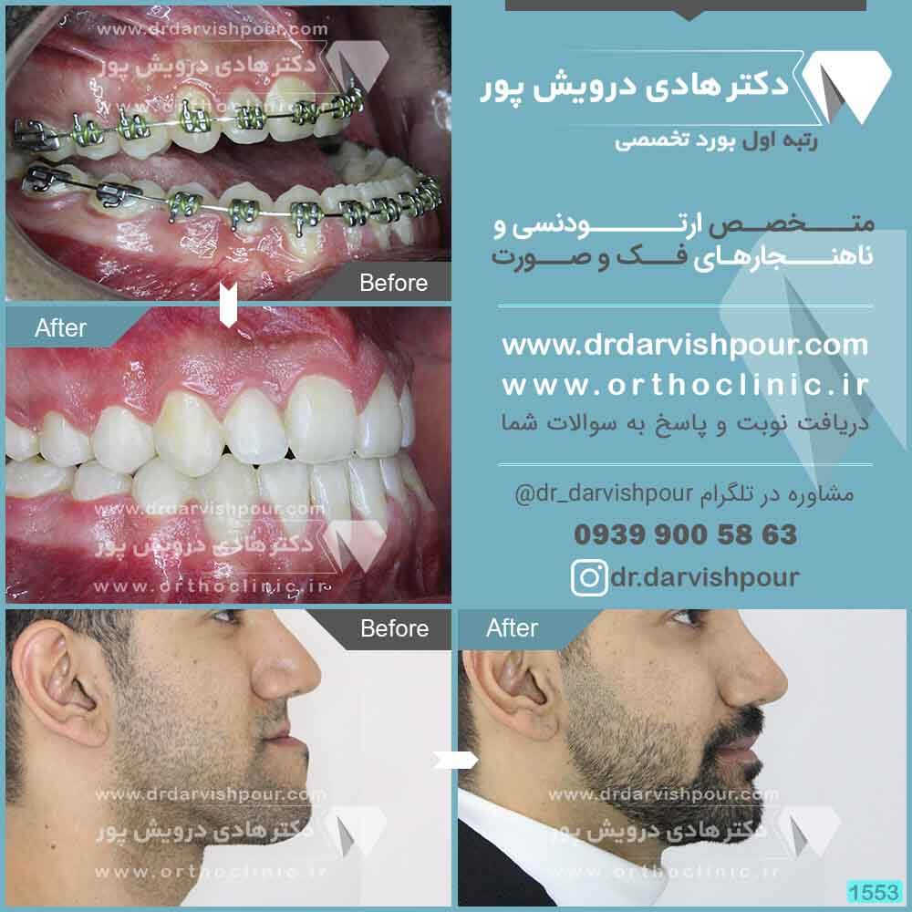 1553orthodontics-before-after-photo