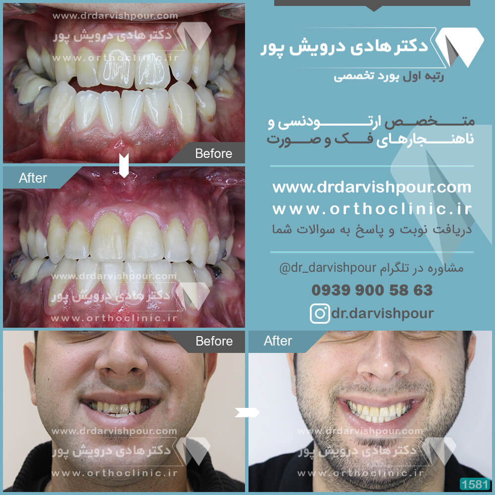 1581orthodontics-before-after-photo