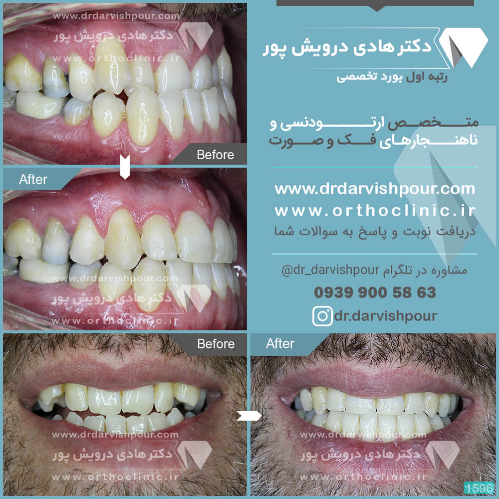 1596orthodontics-before-after-photo