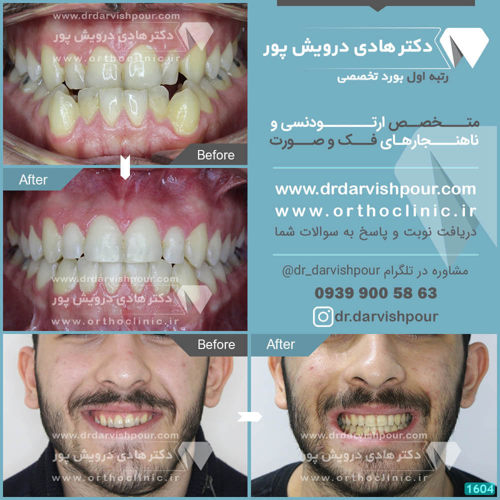 1604orthodontics-before-after-photo