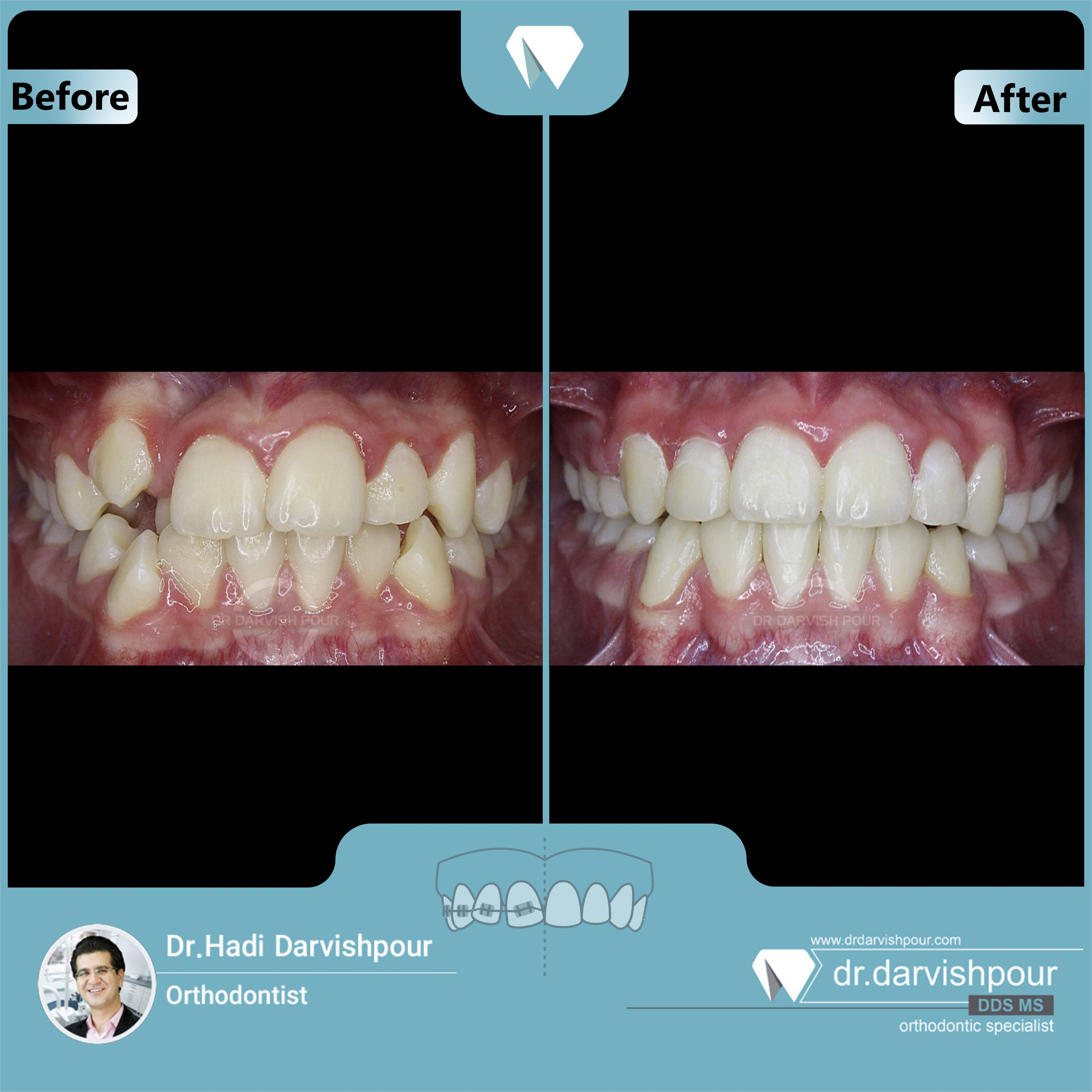1644orthodontics-before-after-photo