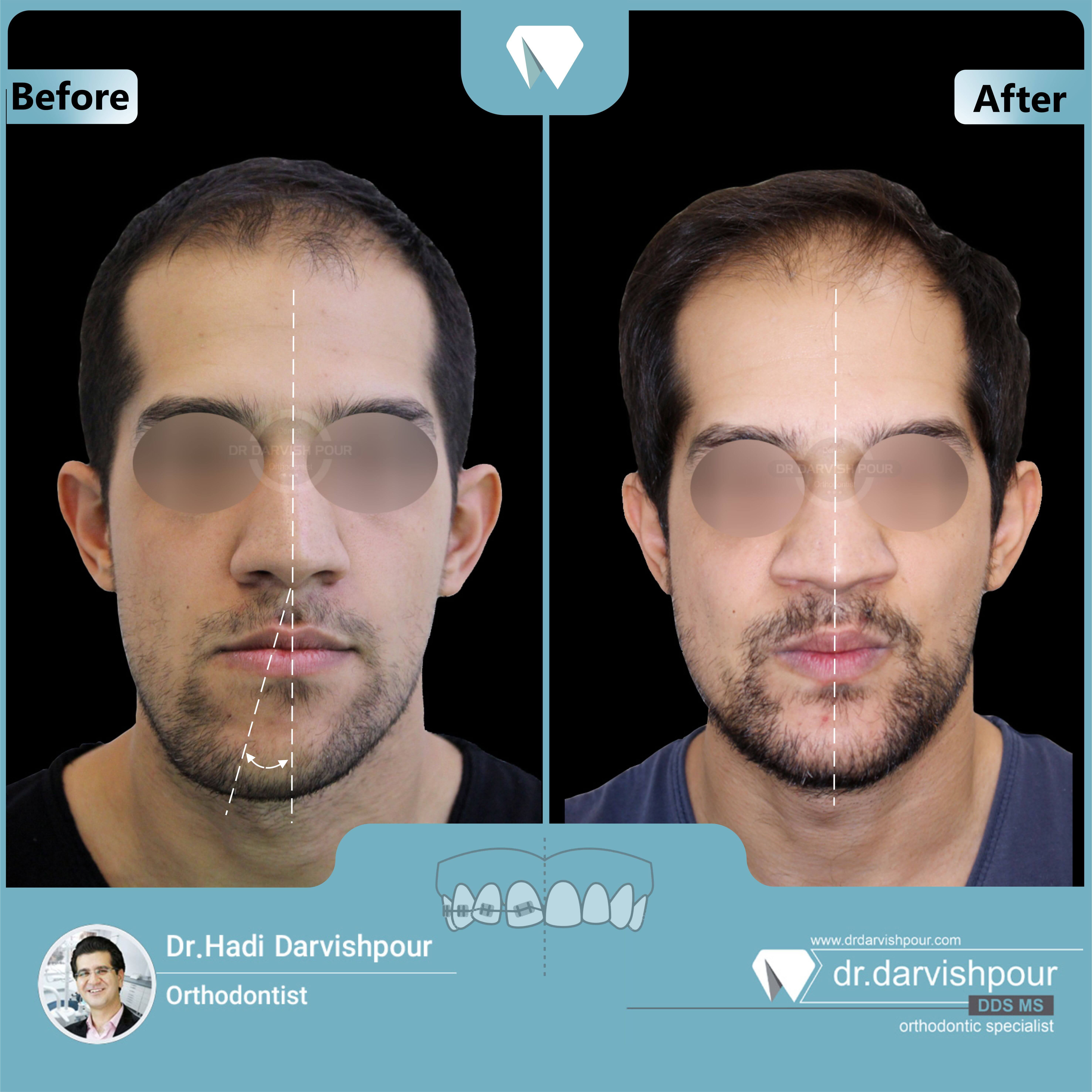 1647orthodontics-before-after-photo