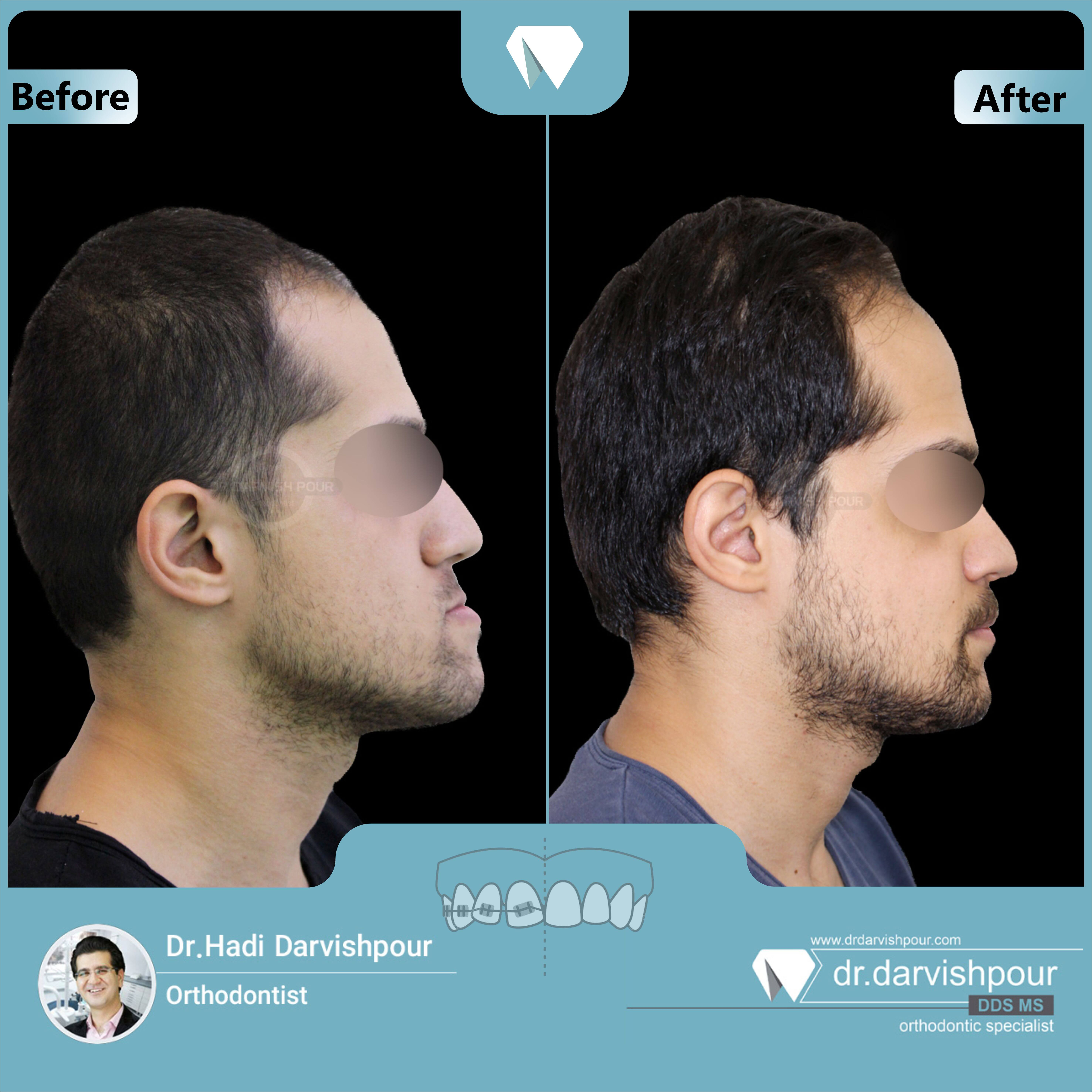 1648orthodontics-before-after-photo