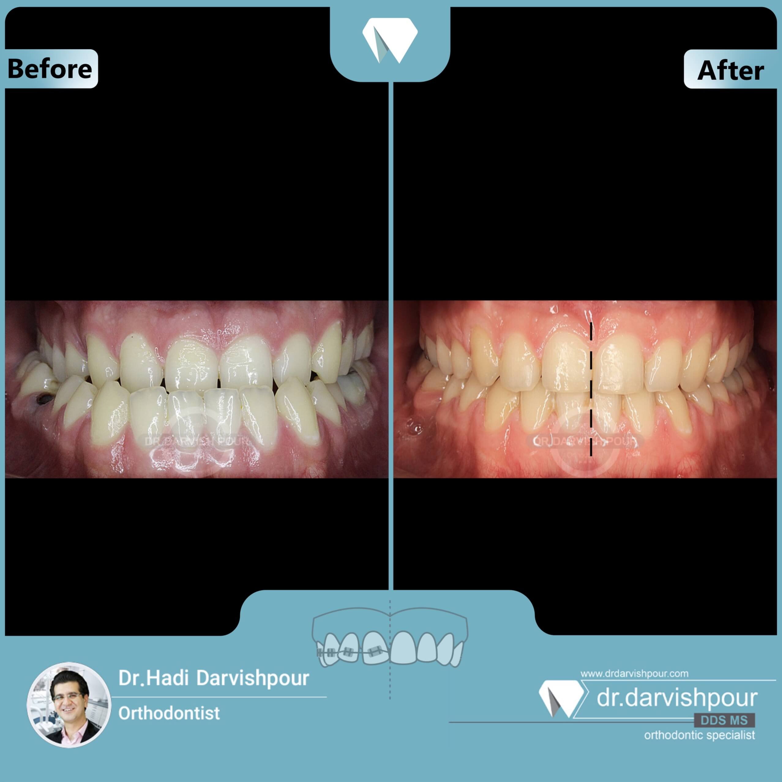 1650orthodontics-before-after-photo