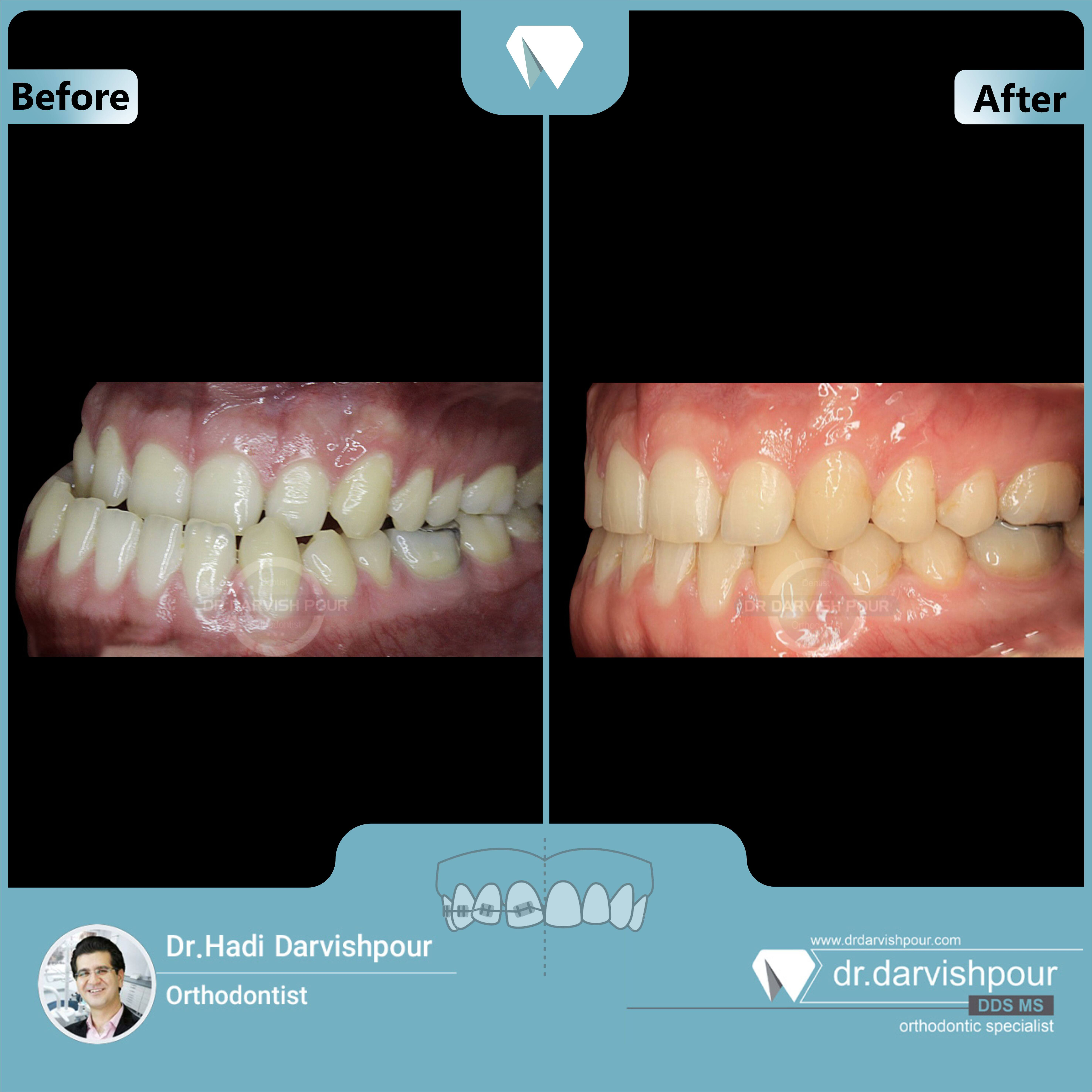 1652orthodontics-before-after-photo