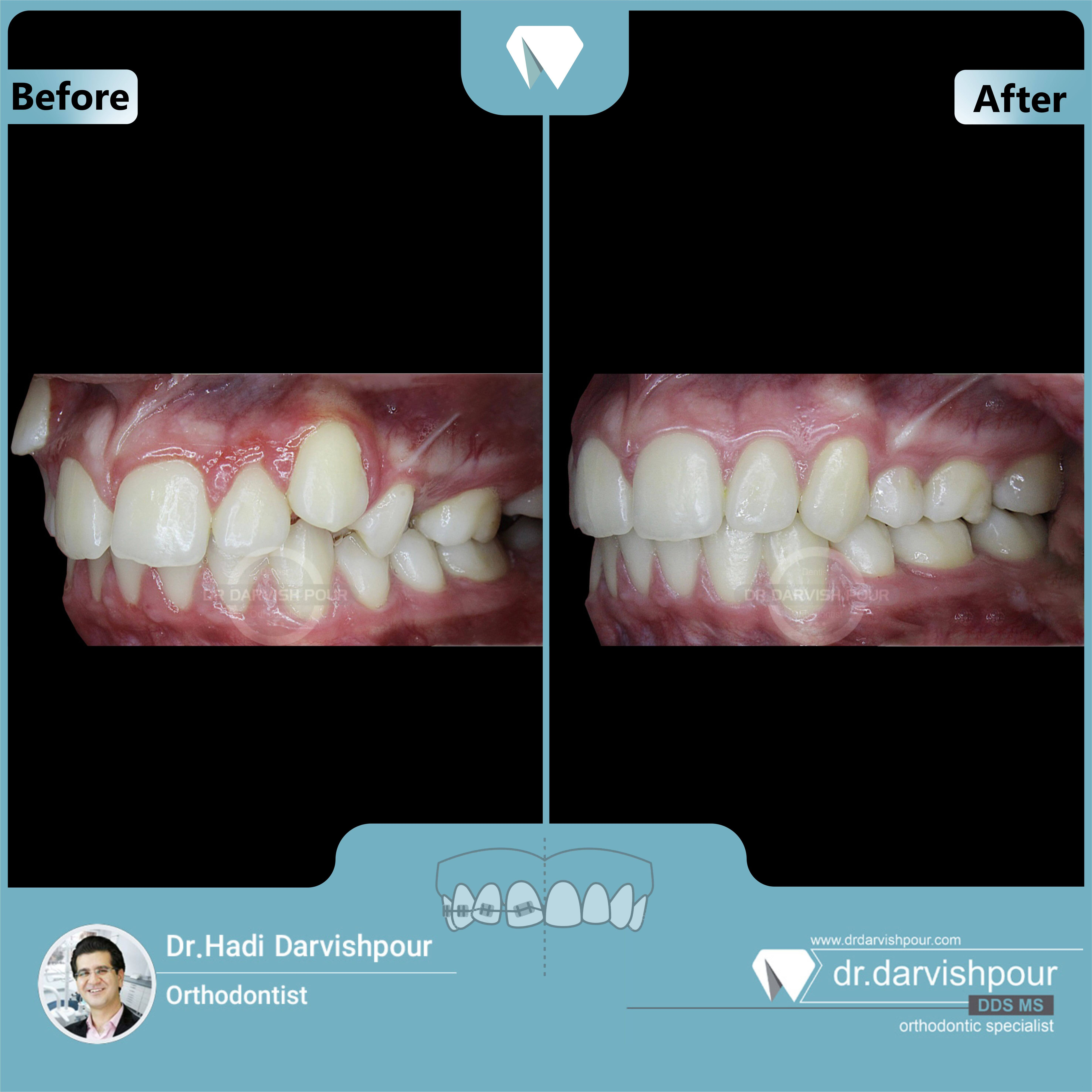 1656orthodontics-before-after-photo