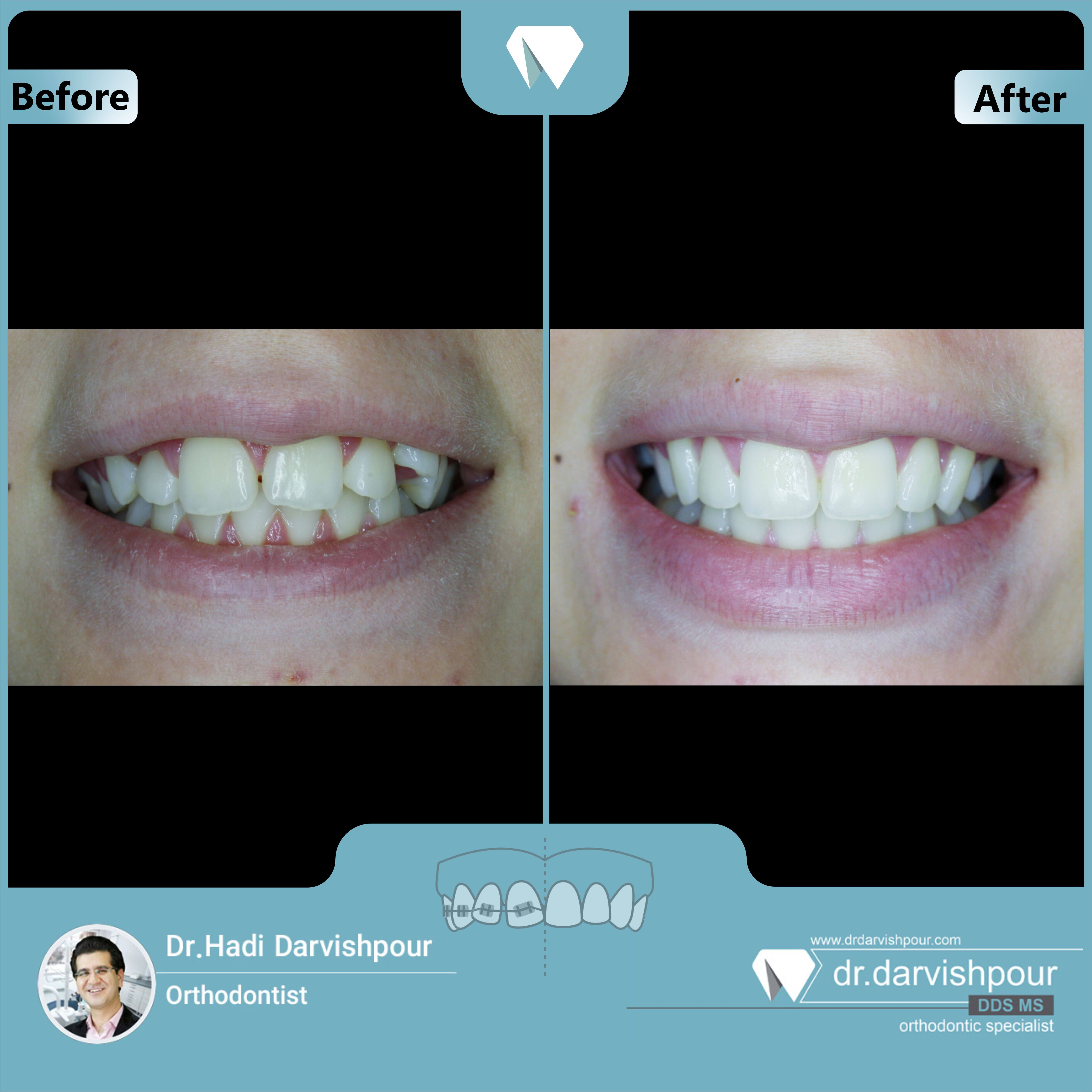 1657orthodontics-before-after-photo