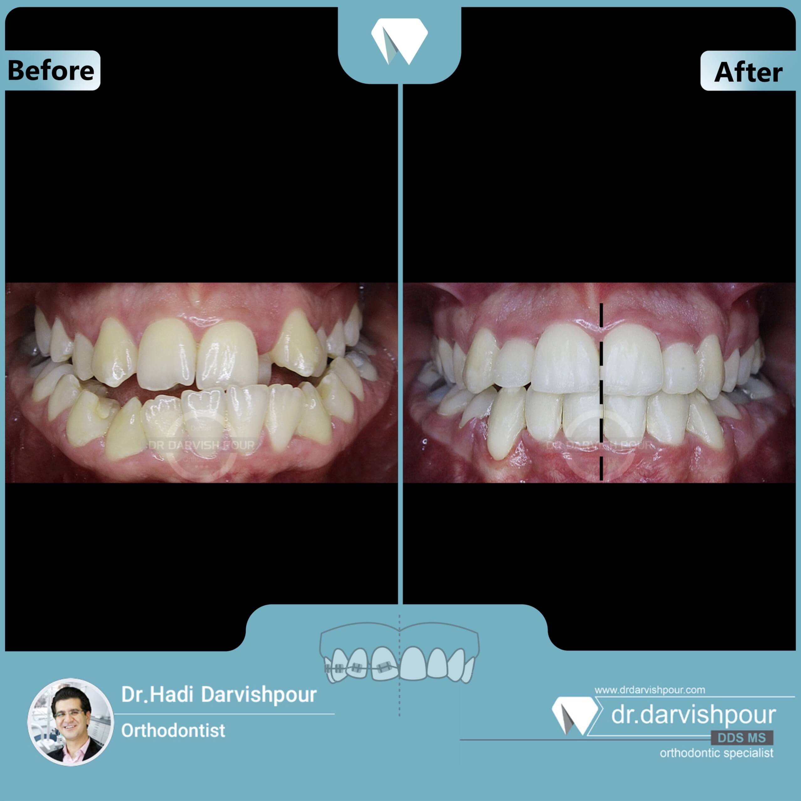 1664orthodontics-before-after-photo