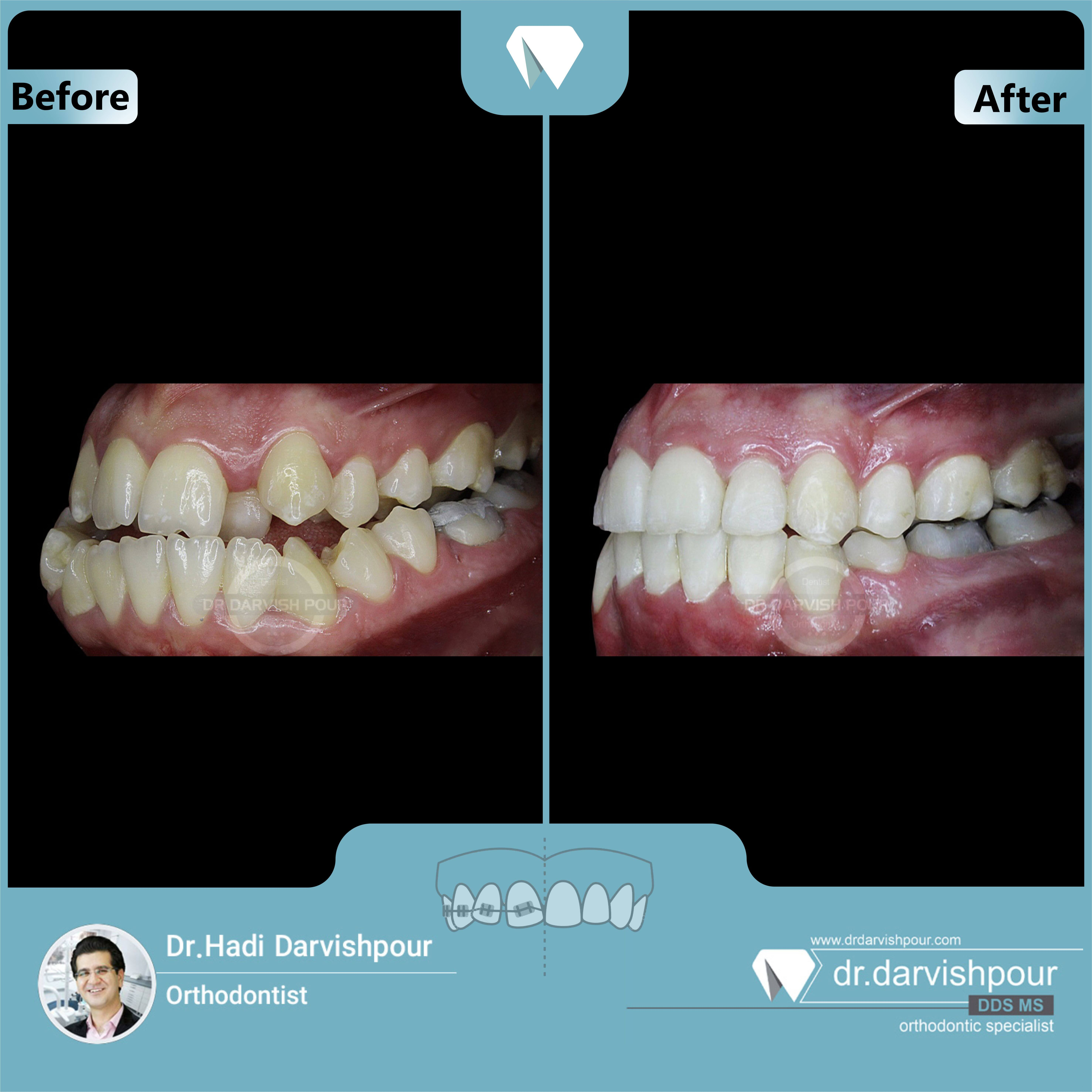 1666orthodontics-before-after-photo