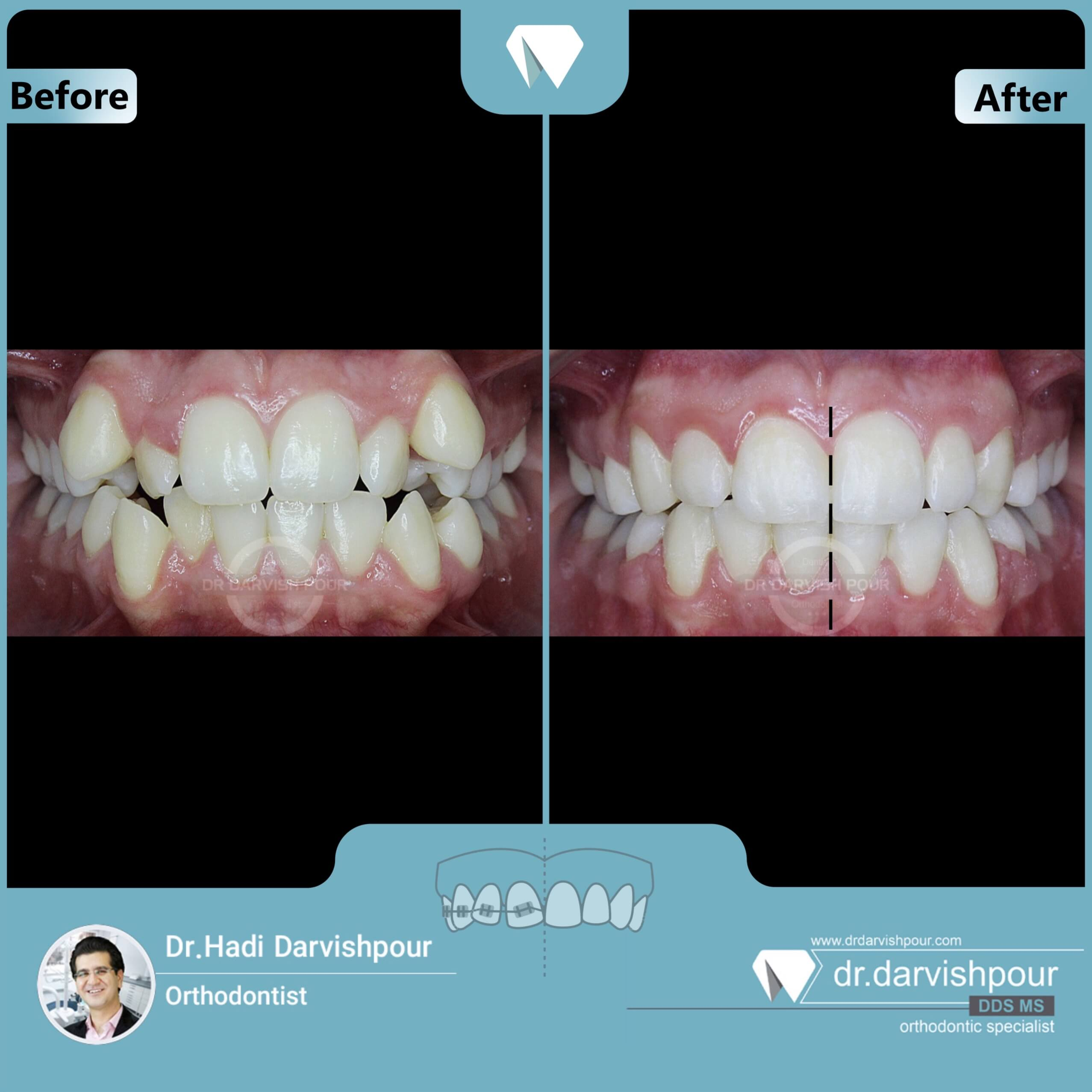 1670orthodontics-before-after-photo