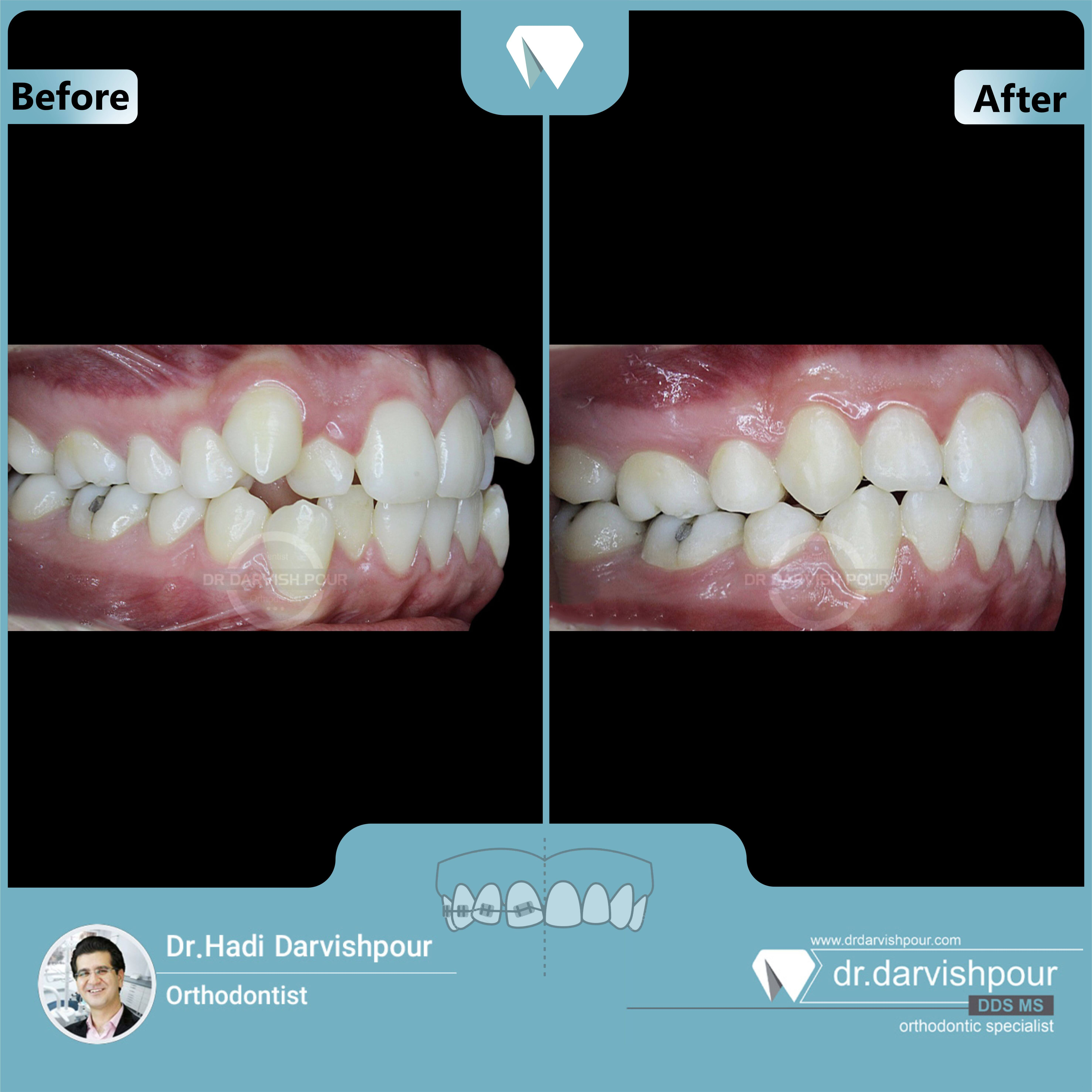 1671orthodontics-before-after-photo
