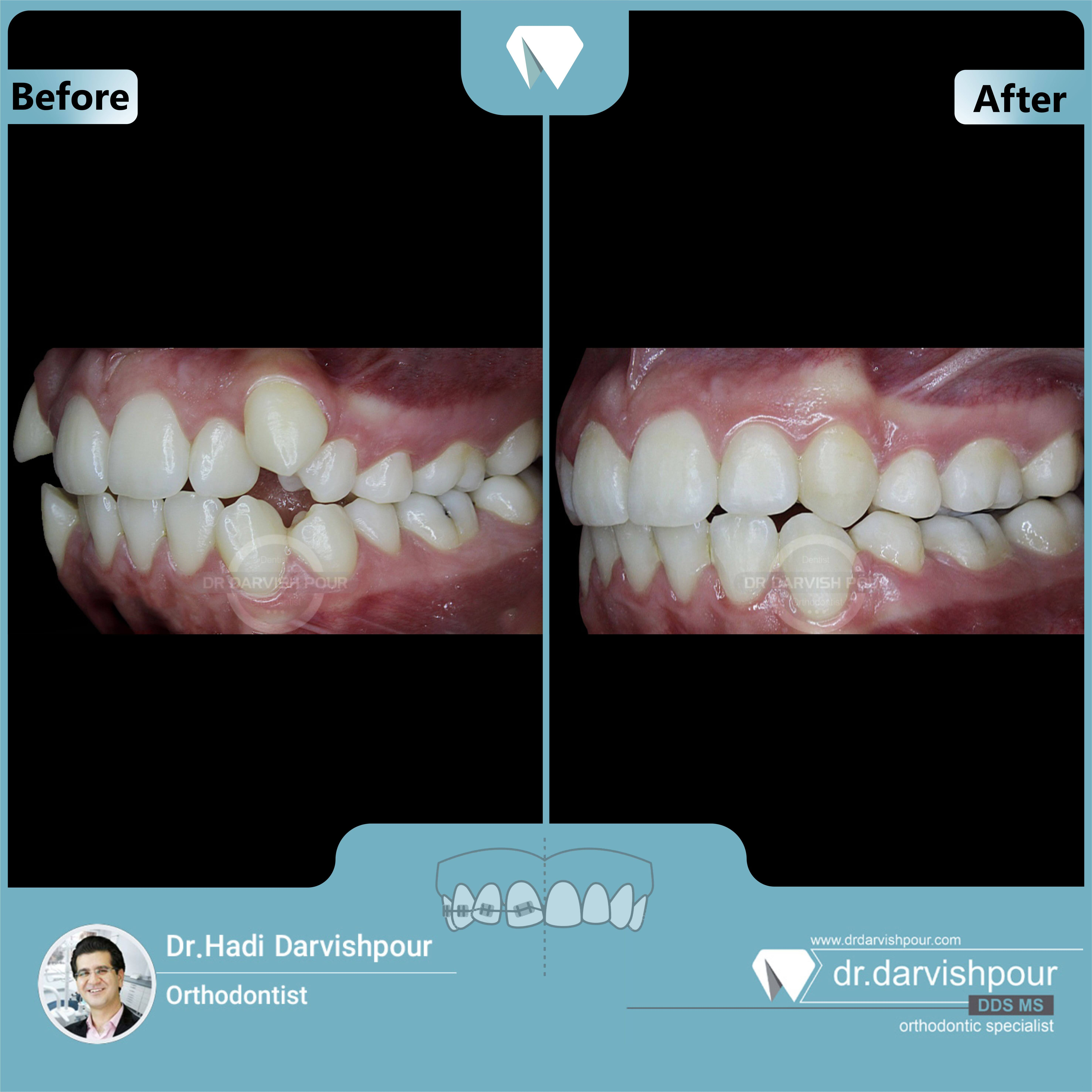 1672orthodontics-before-after-photo