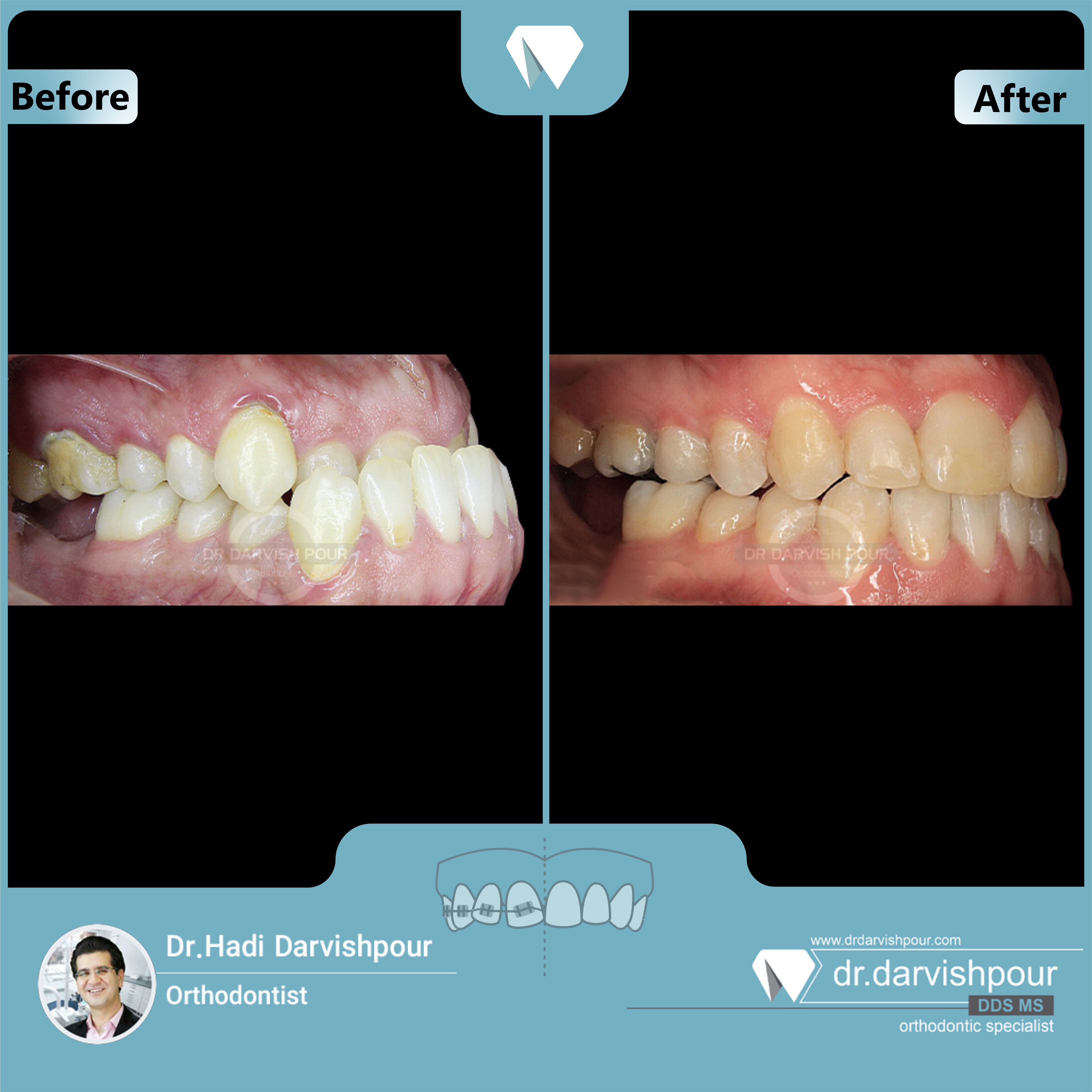 1676orthodontics-before-after-photo