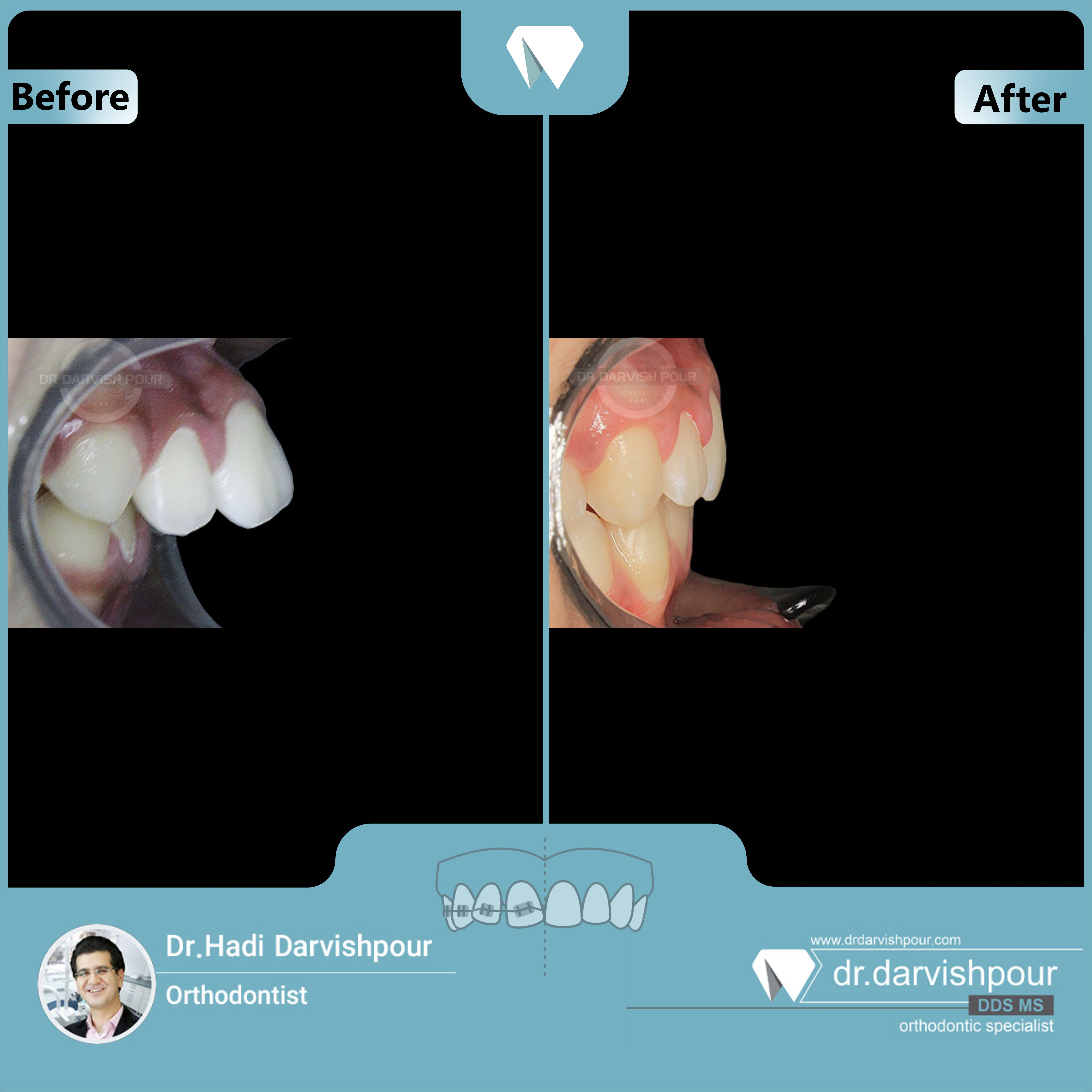 1684orthodontics-before-after-photo