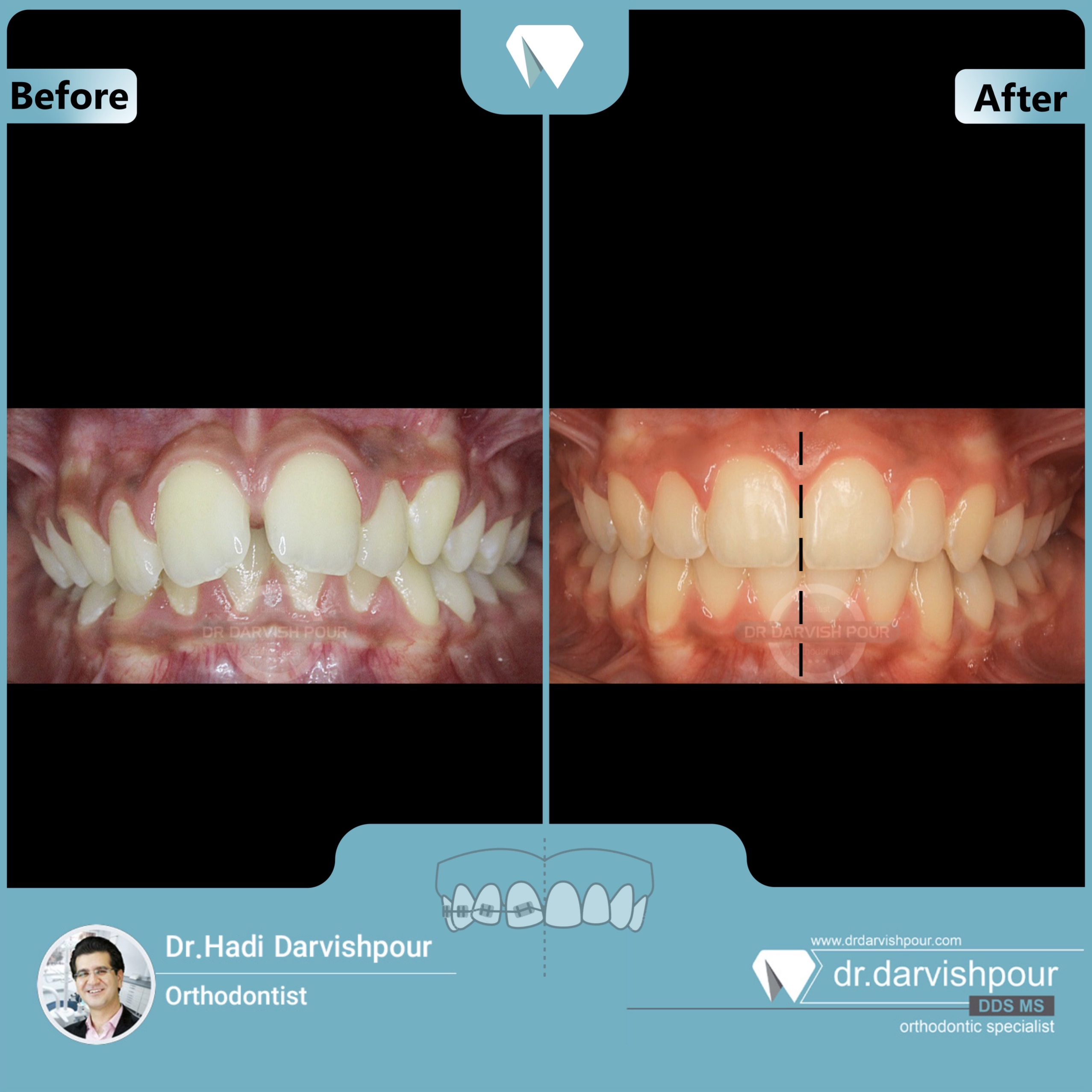 1685orthodontics-before-after-photo