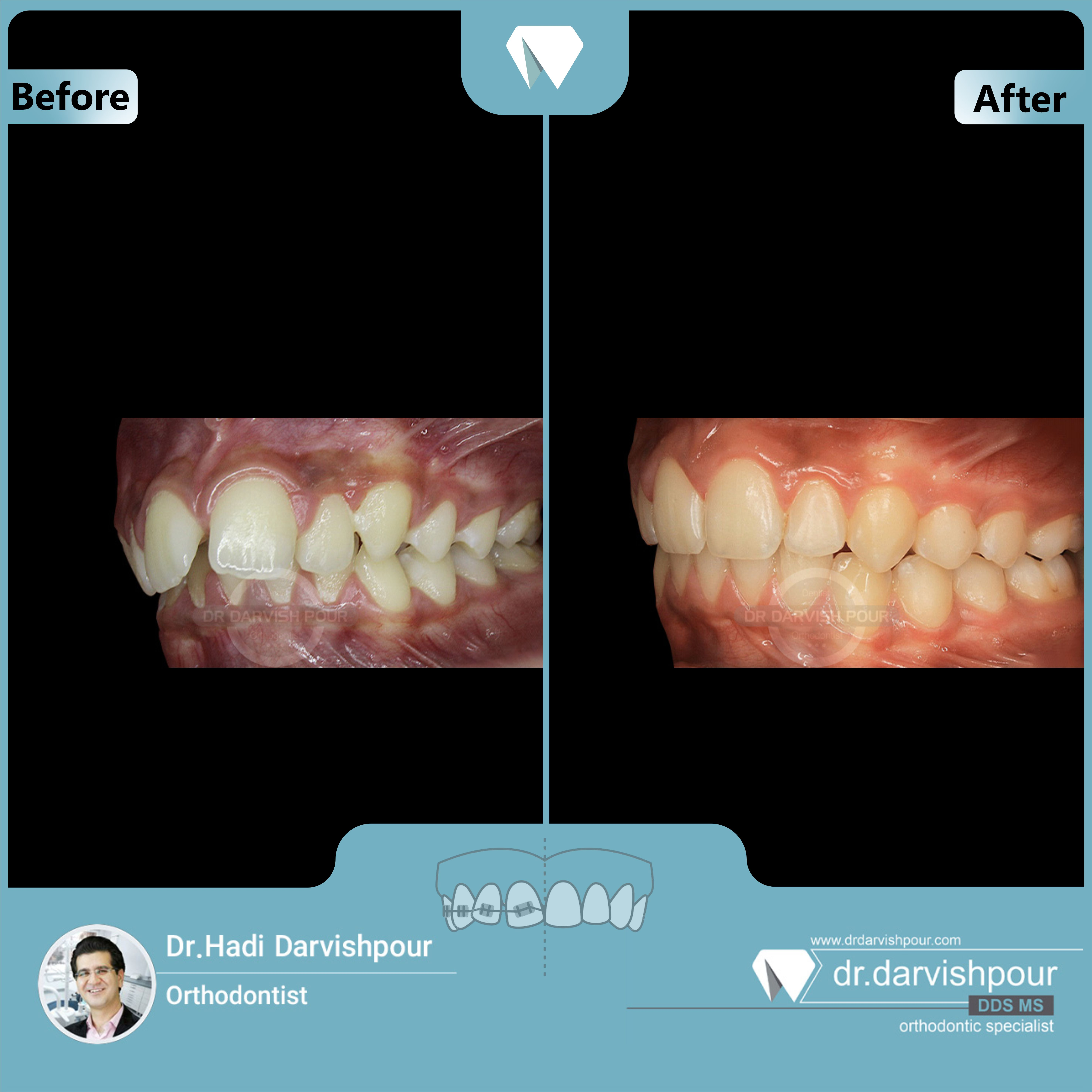 1687orthodontics-before-after-photo