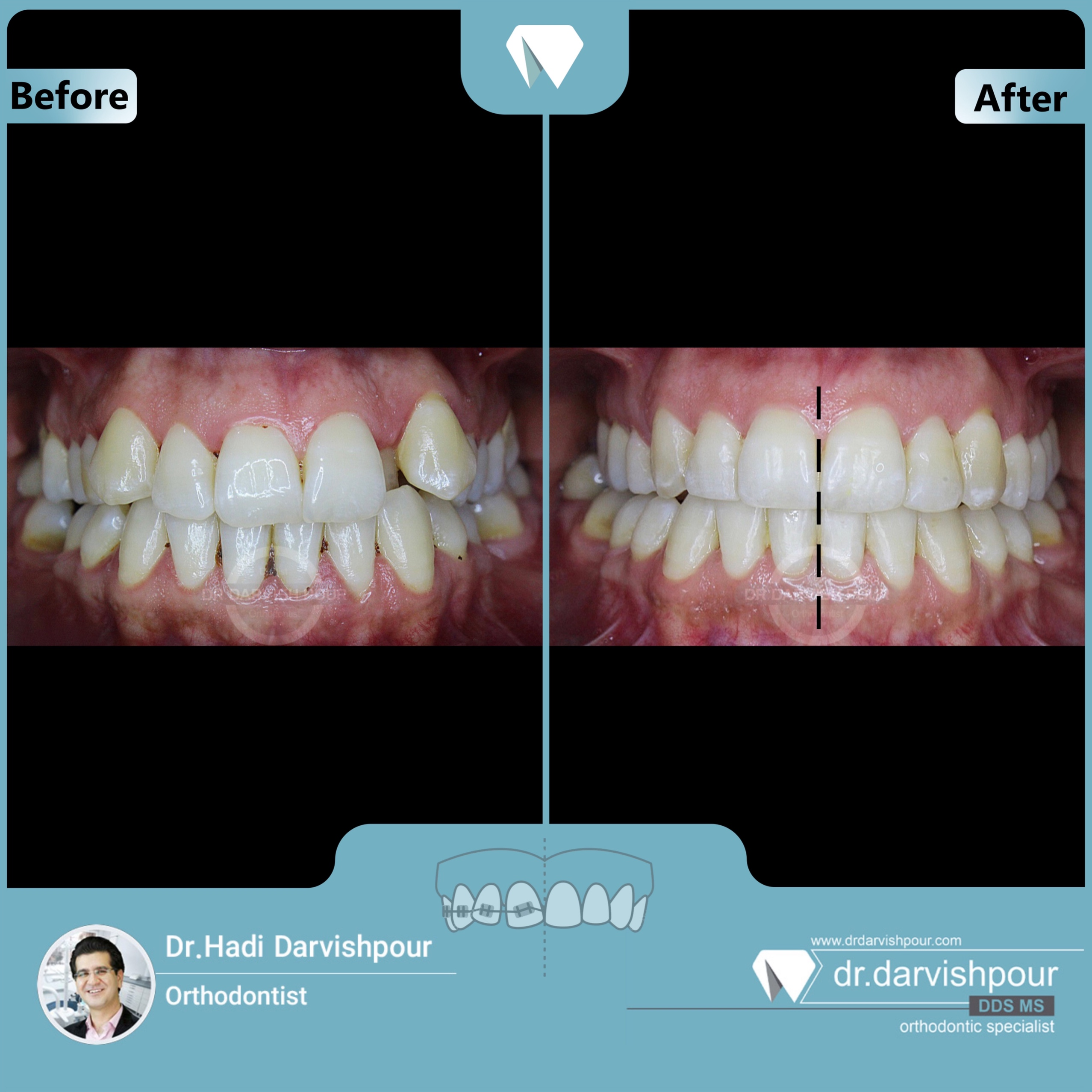 1689orthodontics-before-after-photo