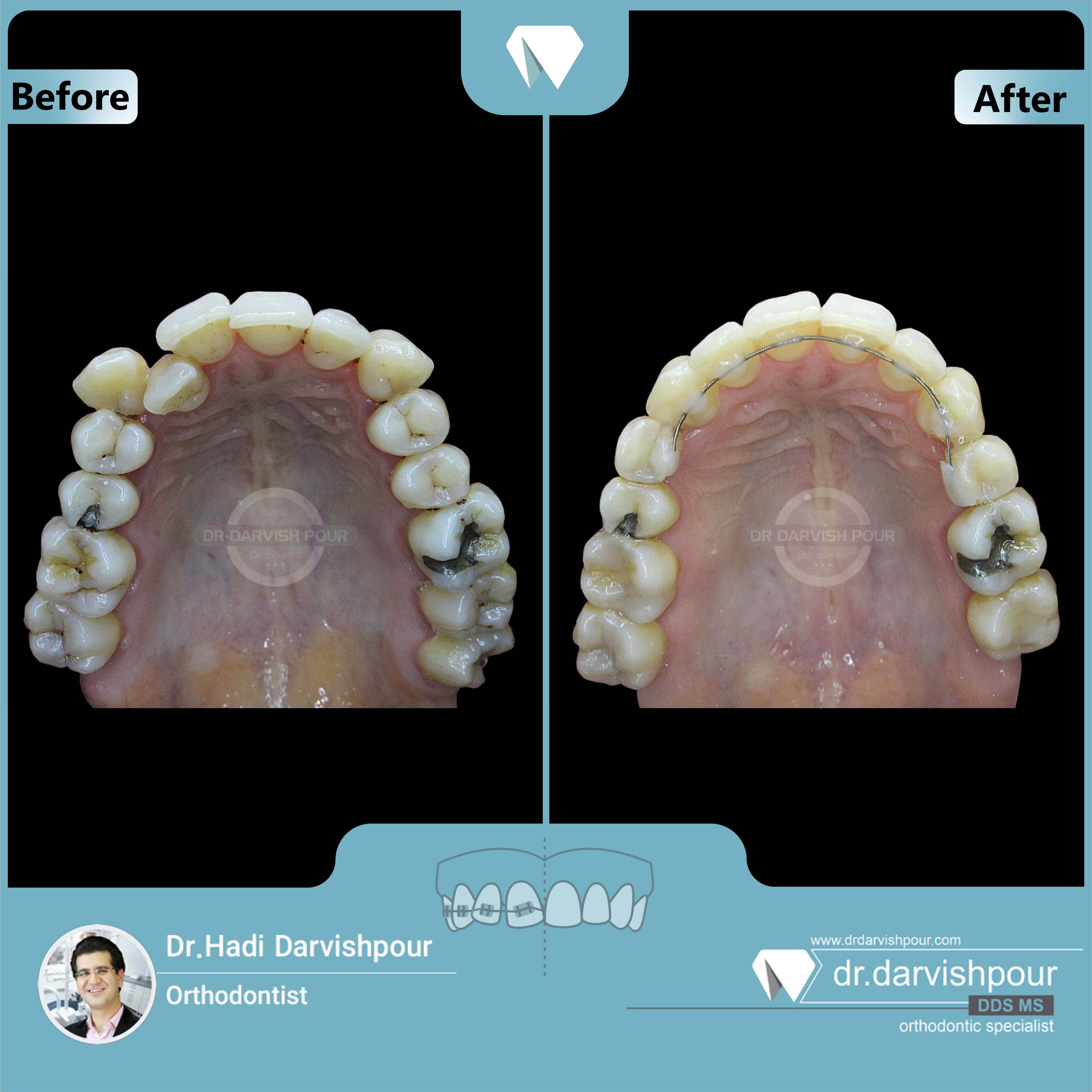 1690orthodontics-before-after-photo