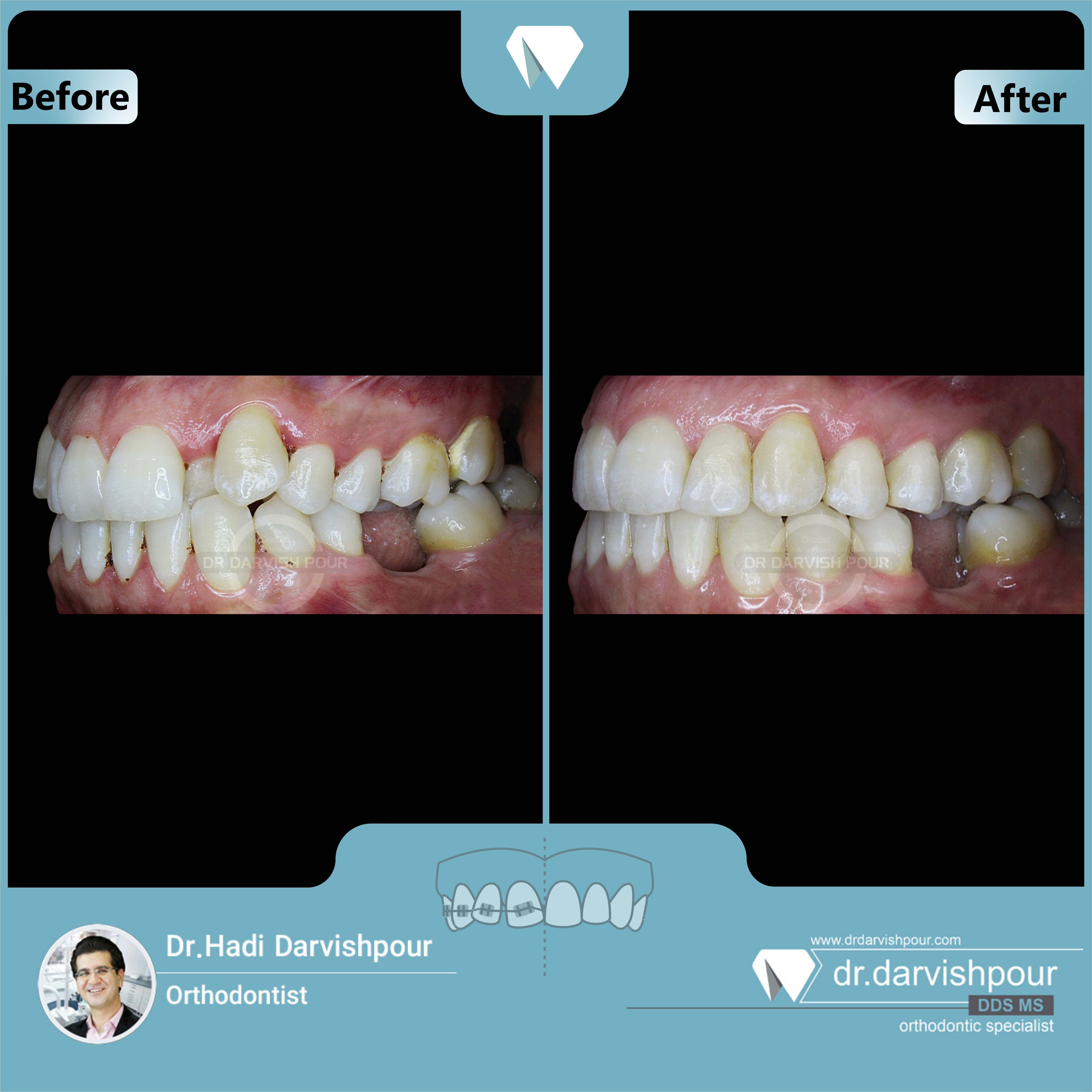 1691orthodontics-before-after-photo