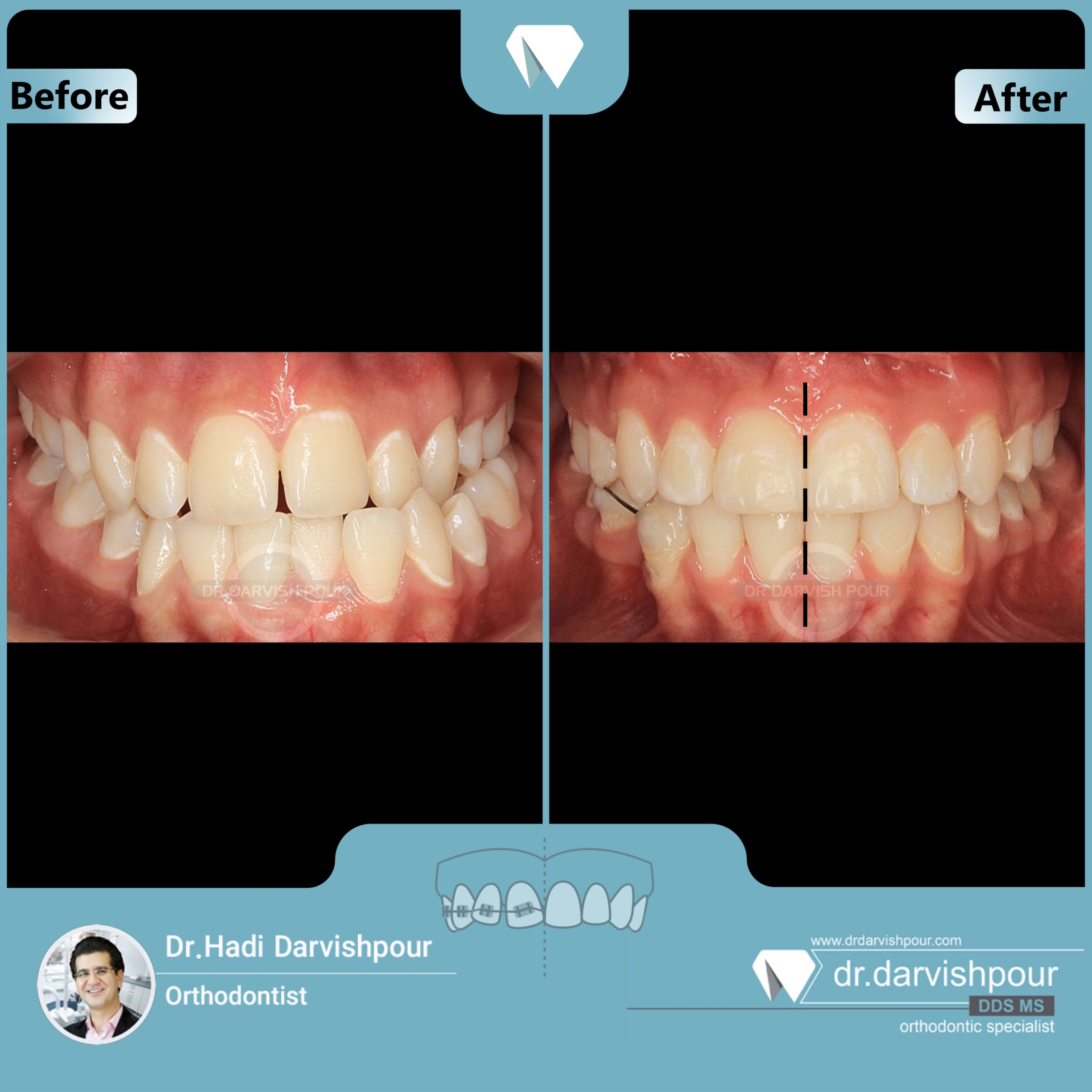 1696orthodontics-before-after-photo