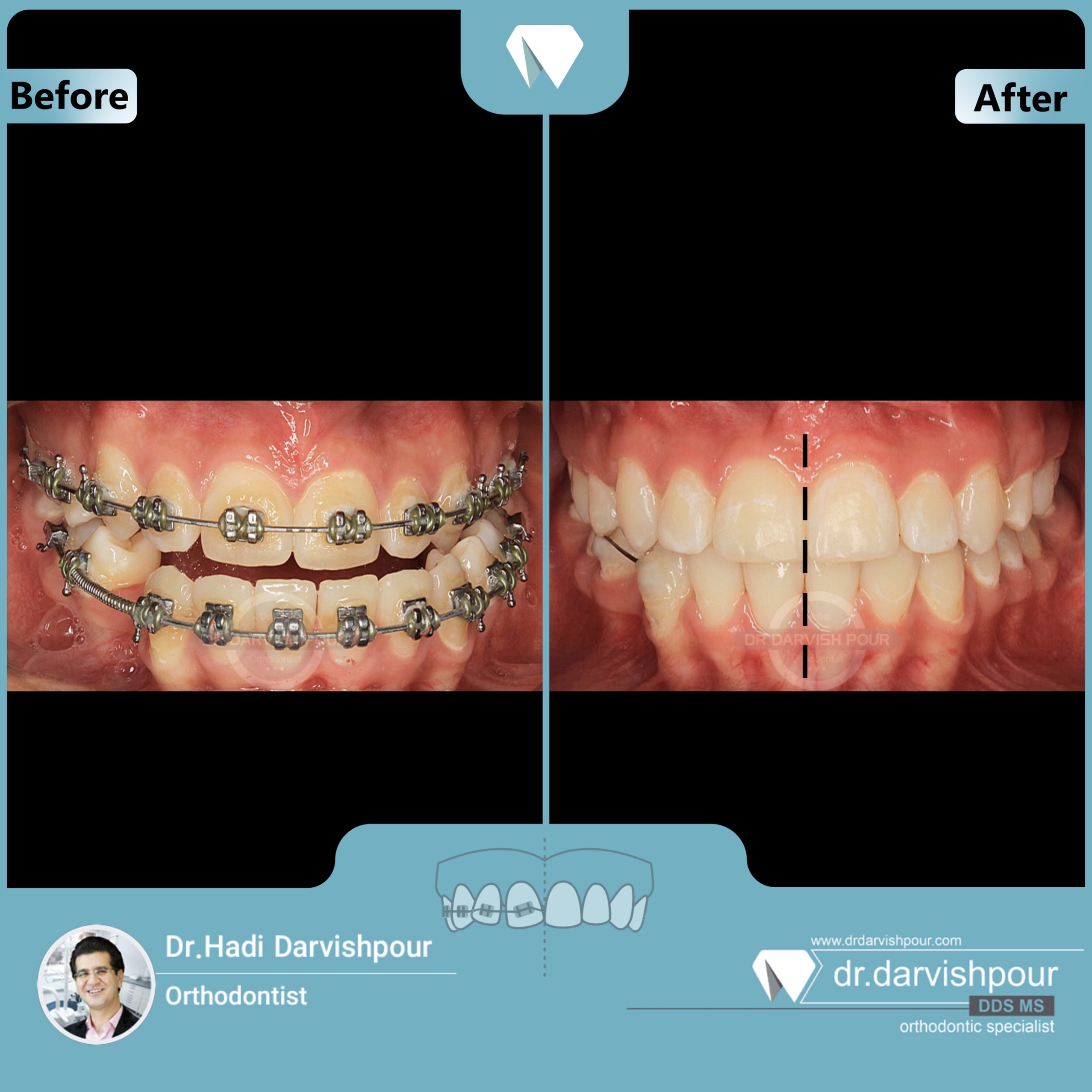 1697orthodontics-before-after-photo
