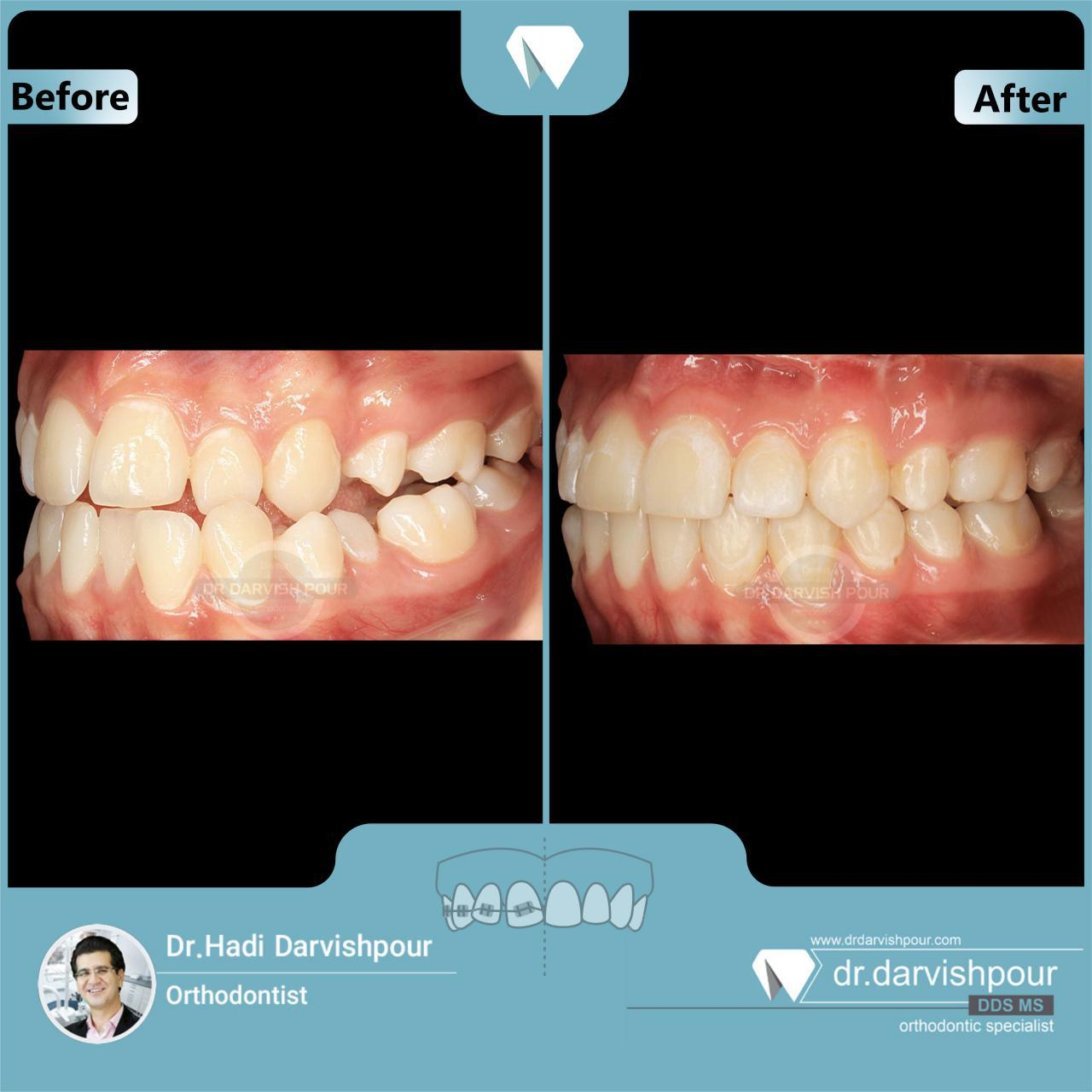 1698orthodontics-before-after-photo