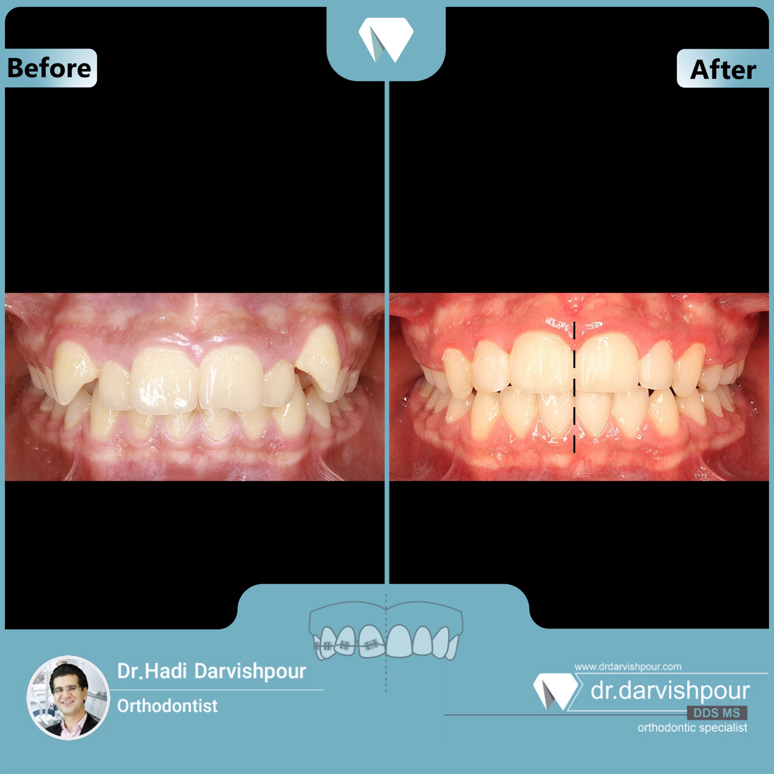 1701orthodontics-before-after-photo