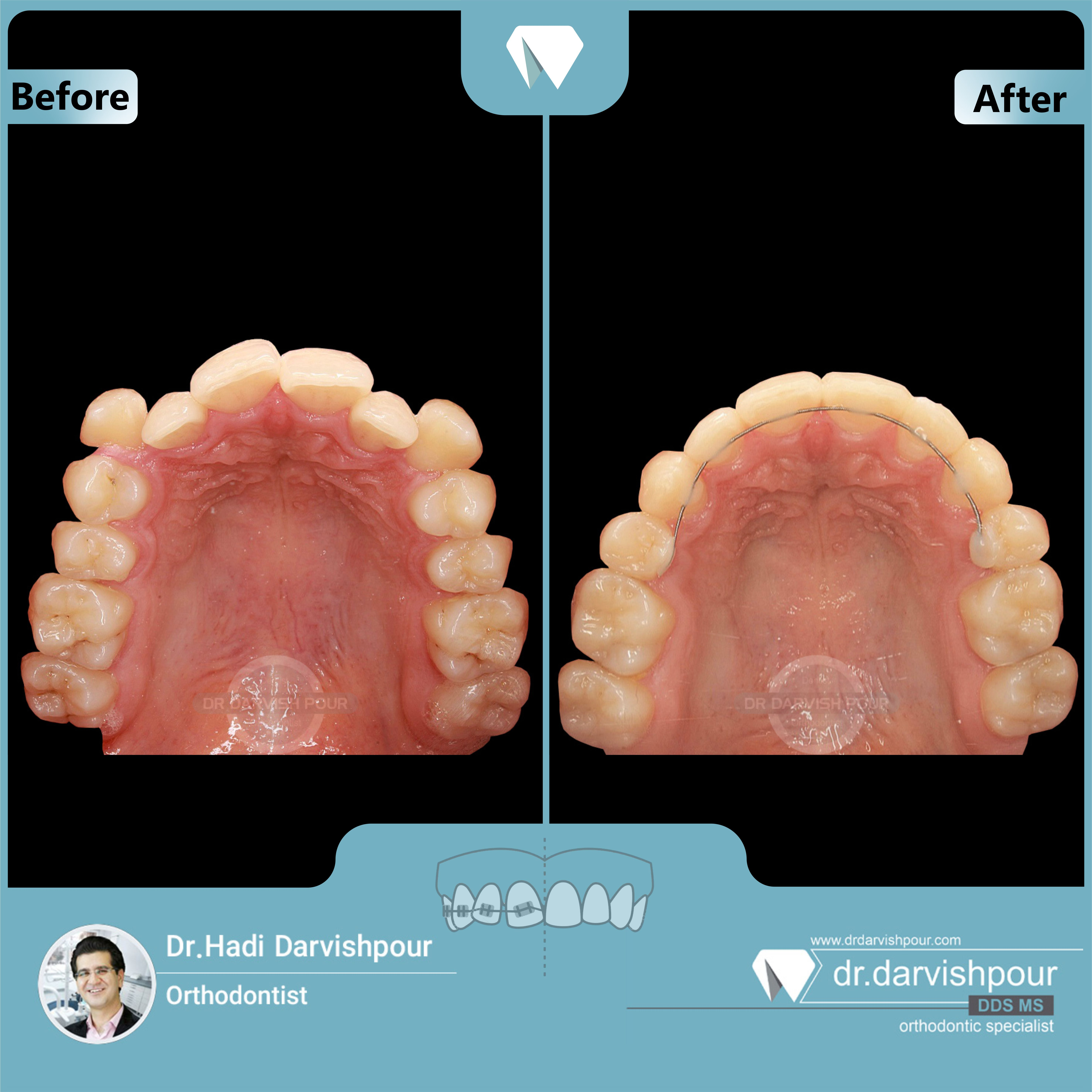 1702orthodontics-before-after-photo