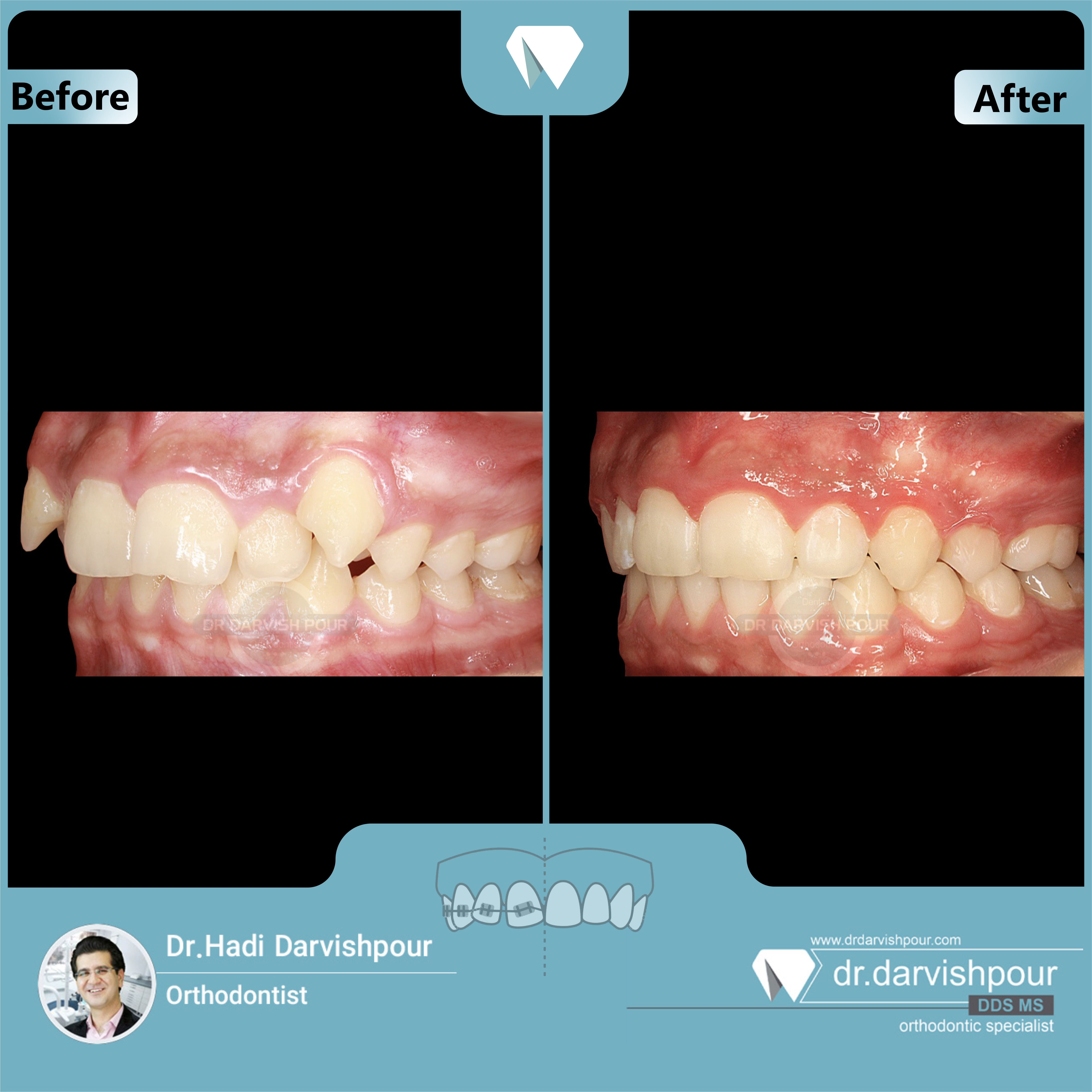 1703orthodontics-before-after-photo