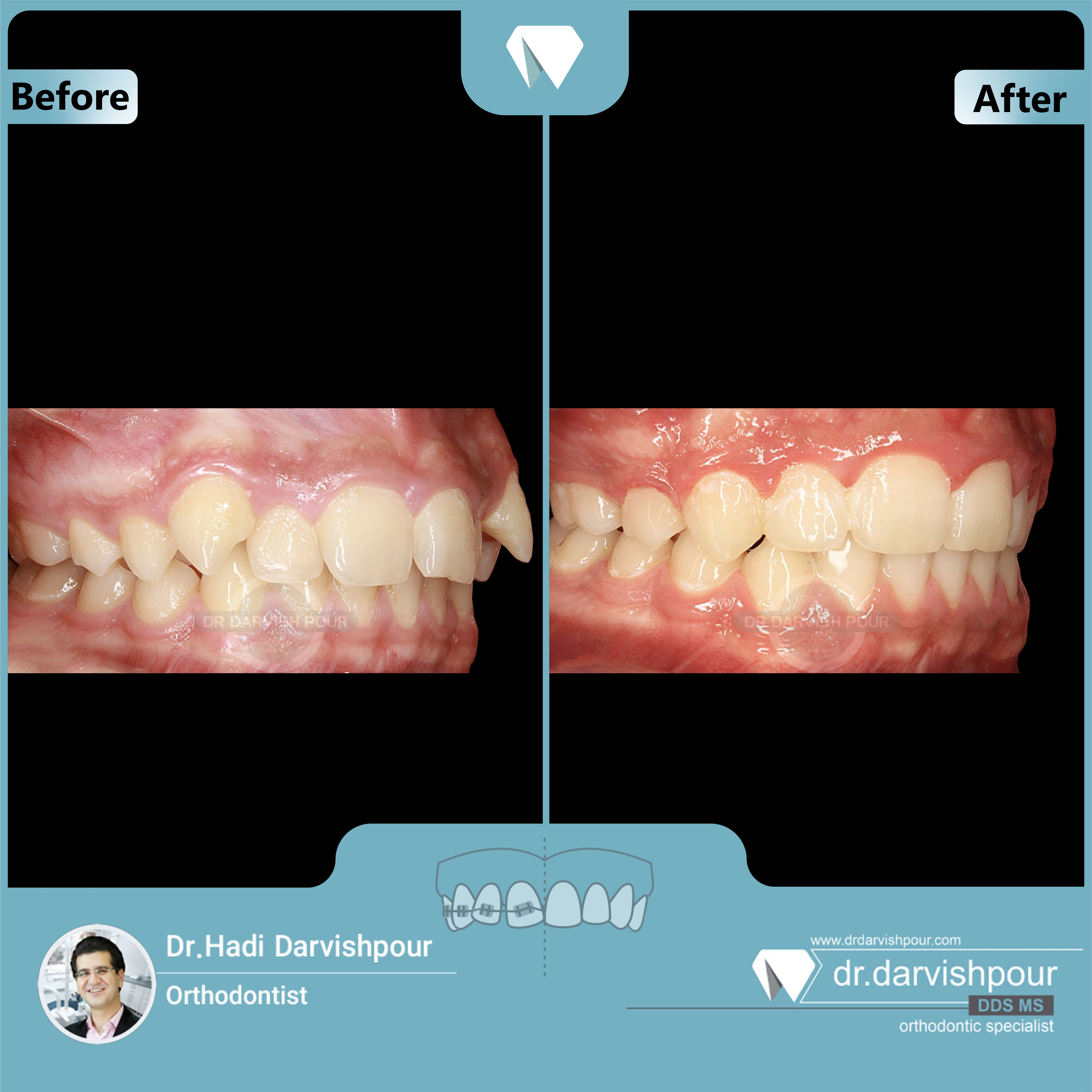 1704orthodontics-before-after-photo