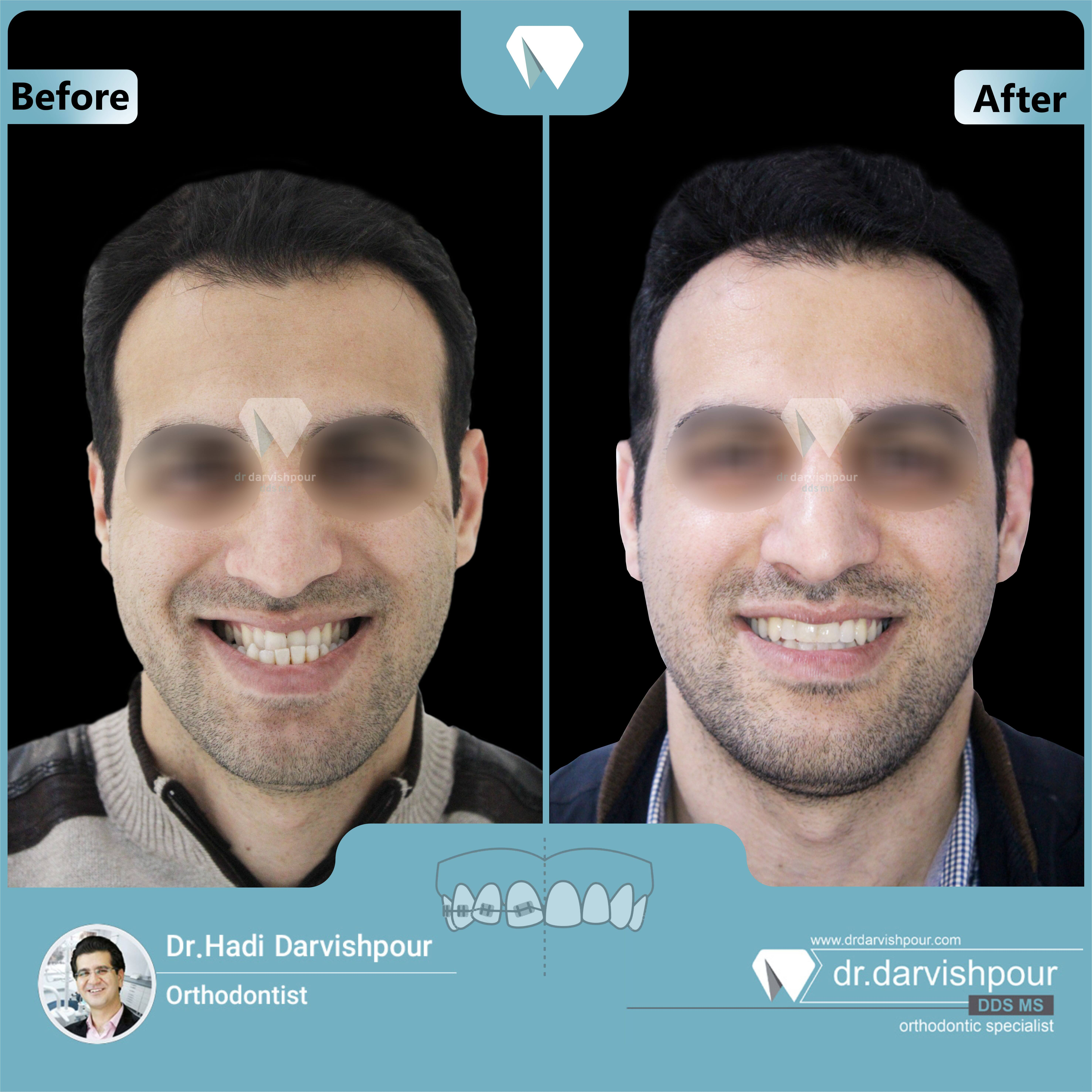 1706orthodontics-before-after-photo
