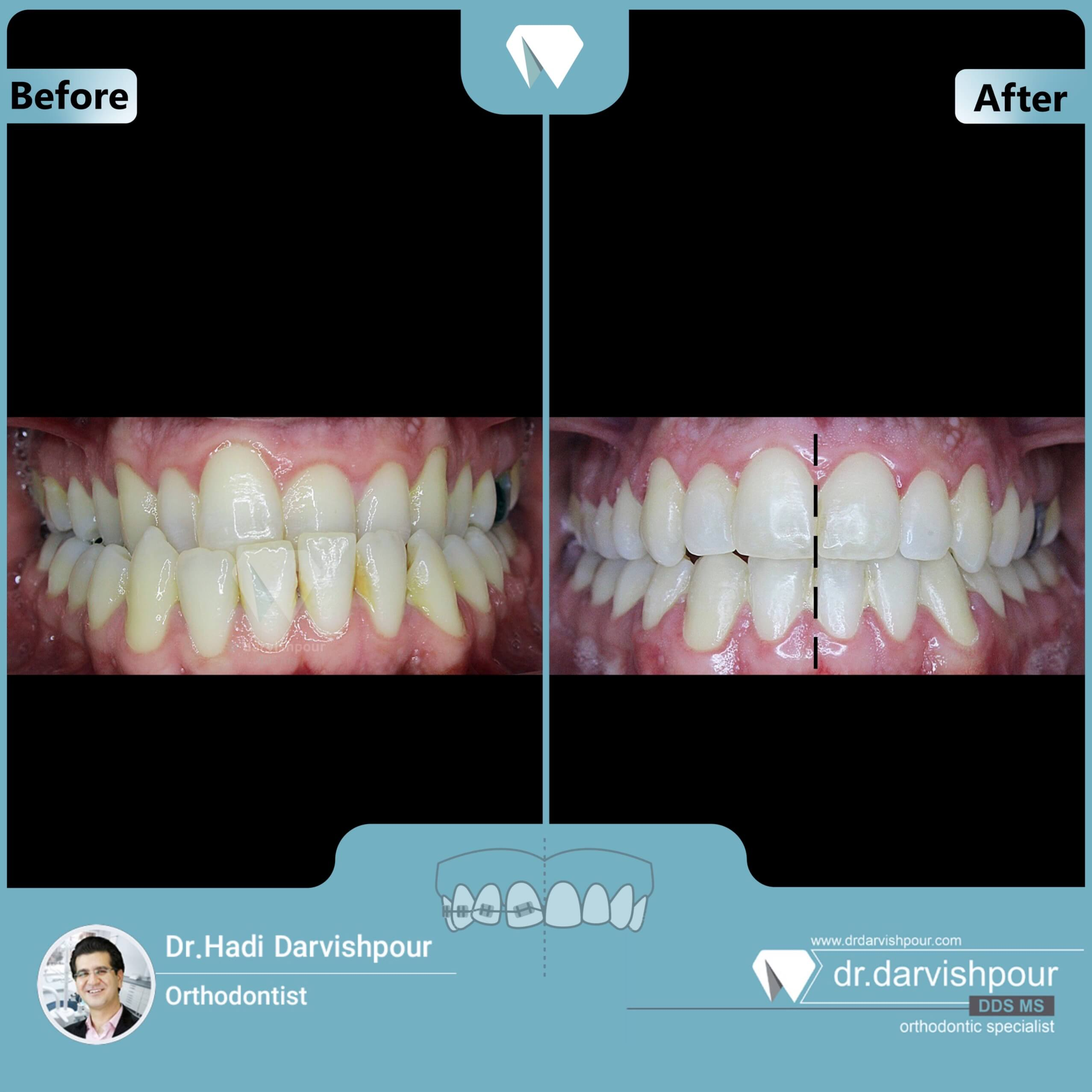 1707orthodontics-before-after-photo