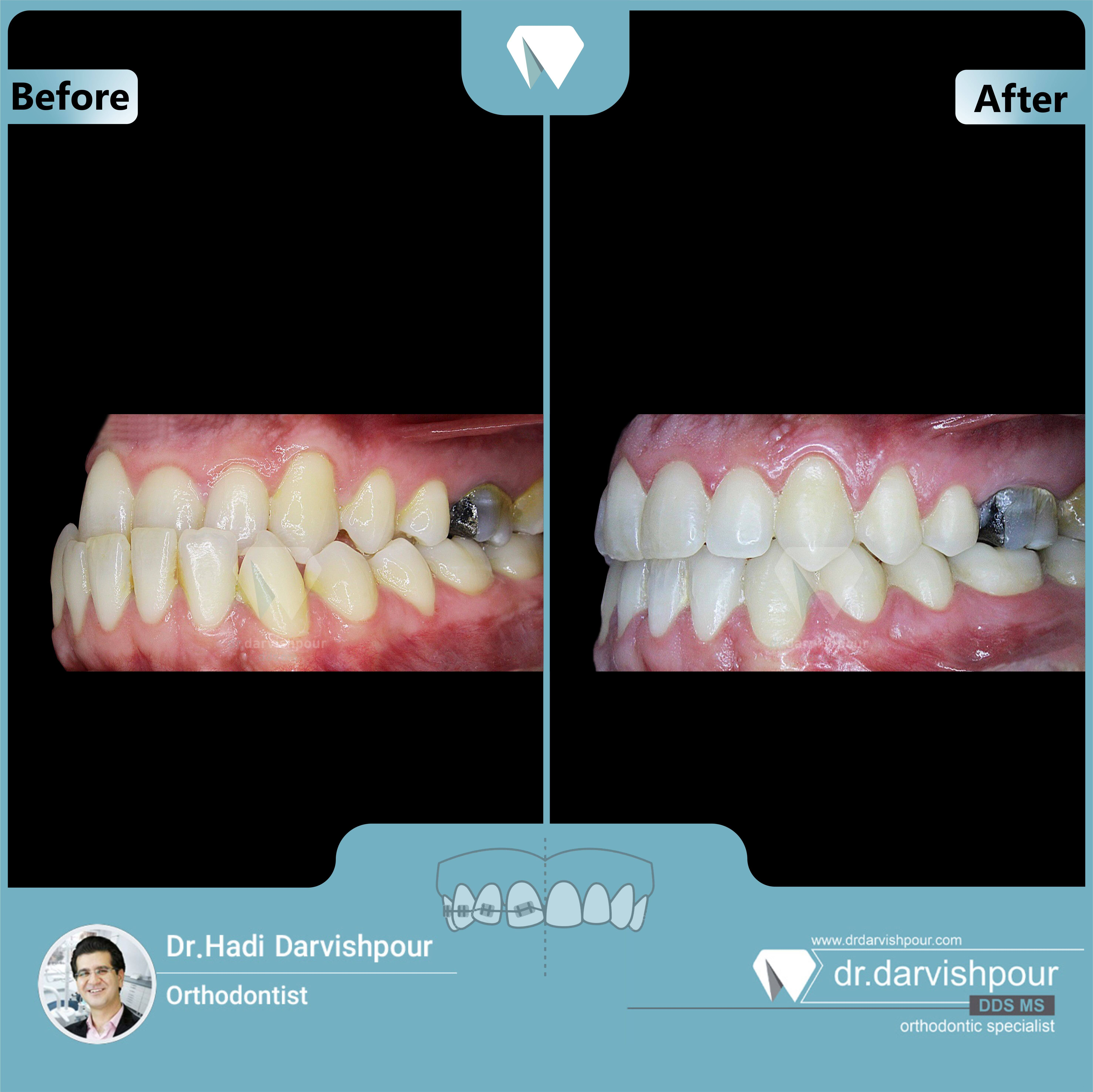 1708orthodontics-before-after-photo