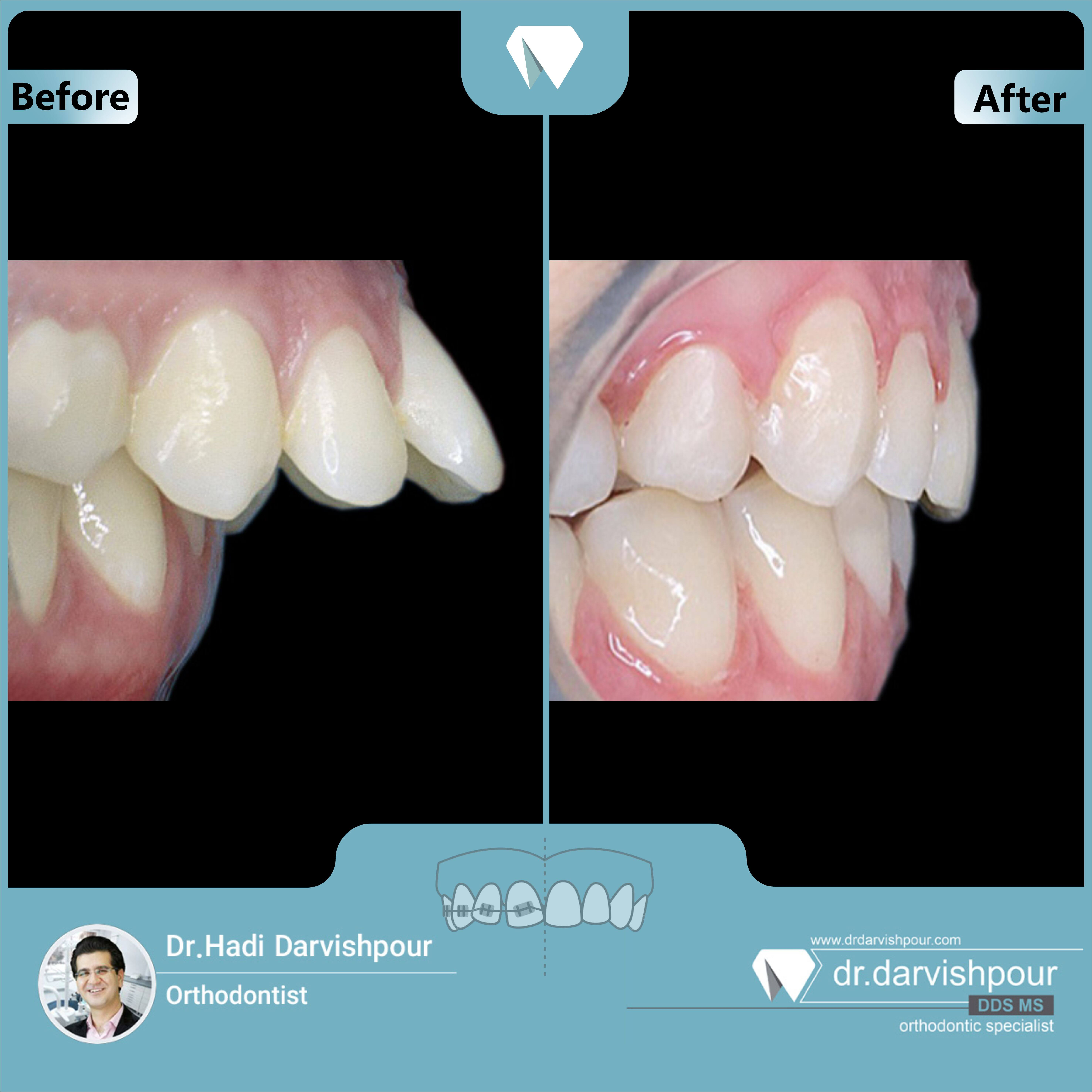 1710orthodontics-before-after-photo