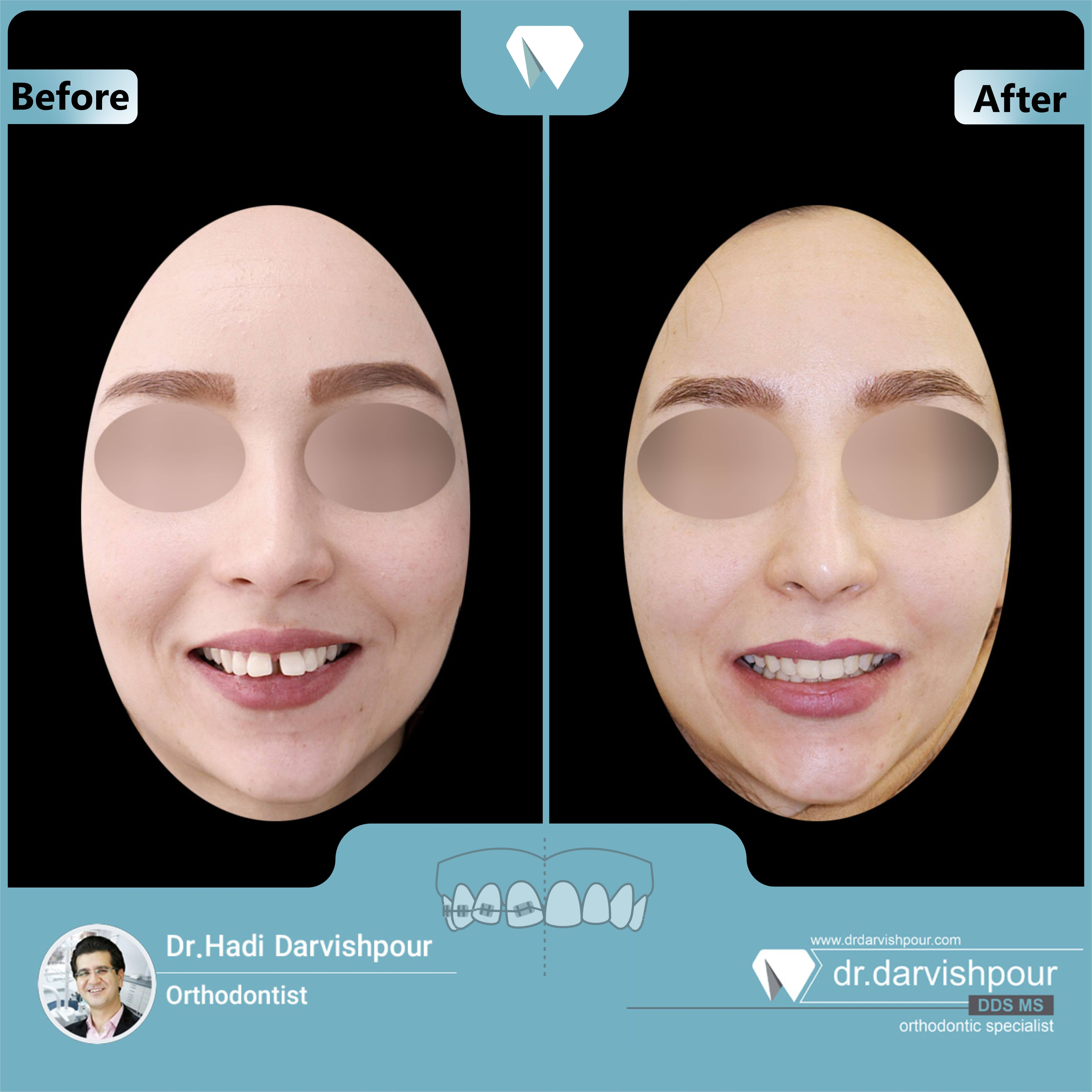 1711orthodontics-before-after-photo