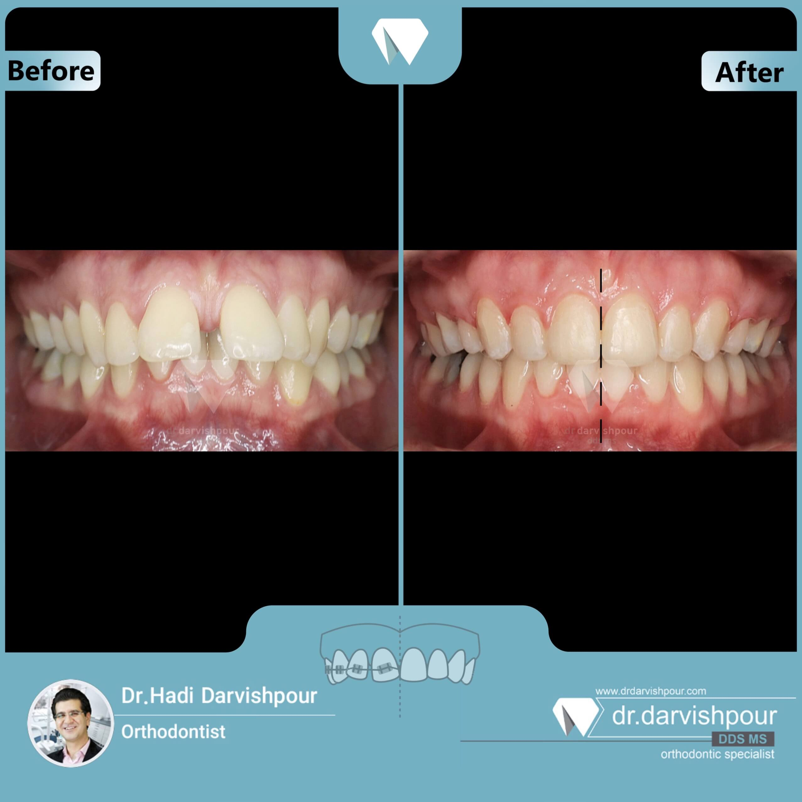 1712orthodontics-before-after-photo