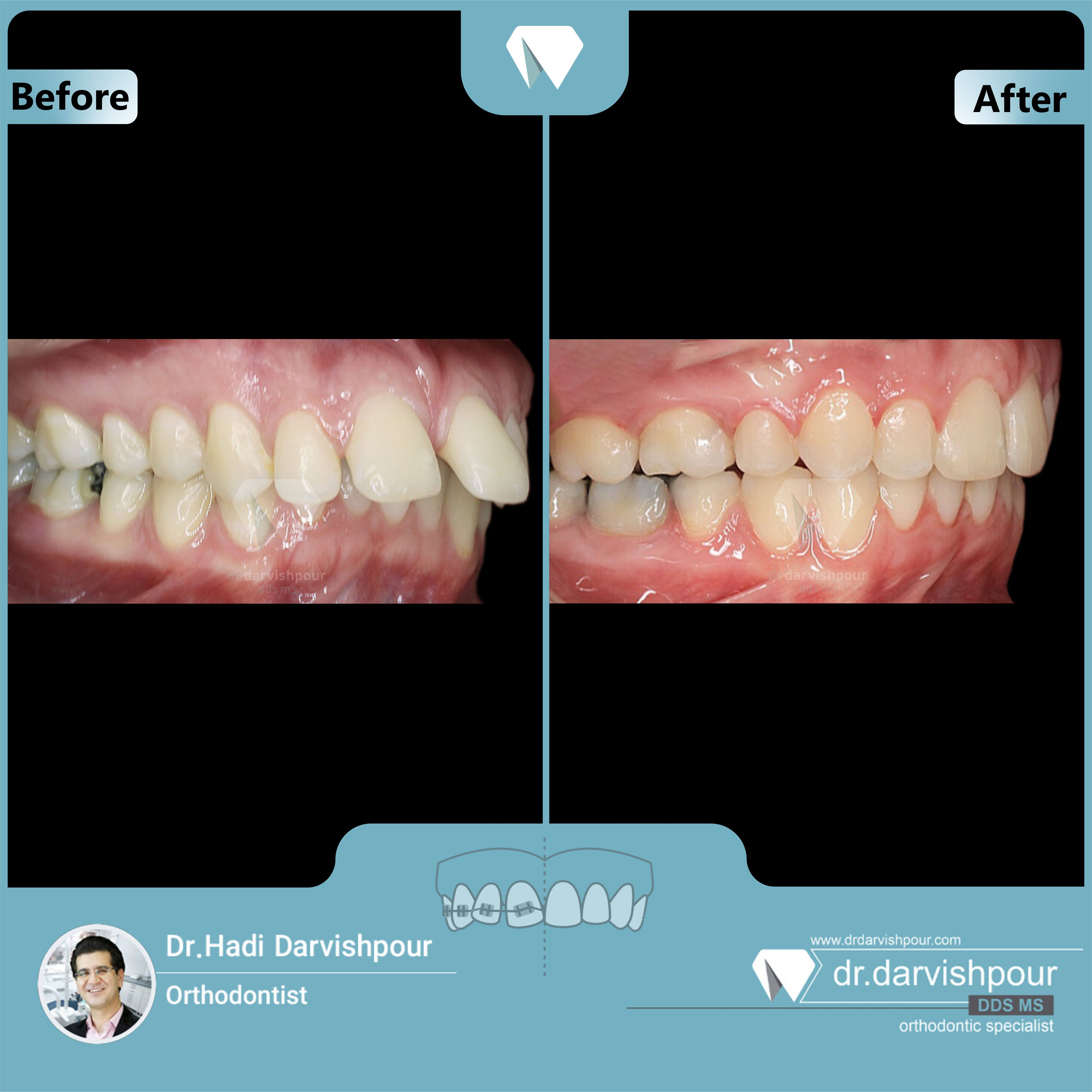 1713orthodontics-before-after-photo