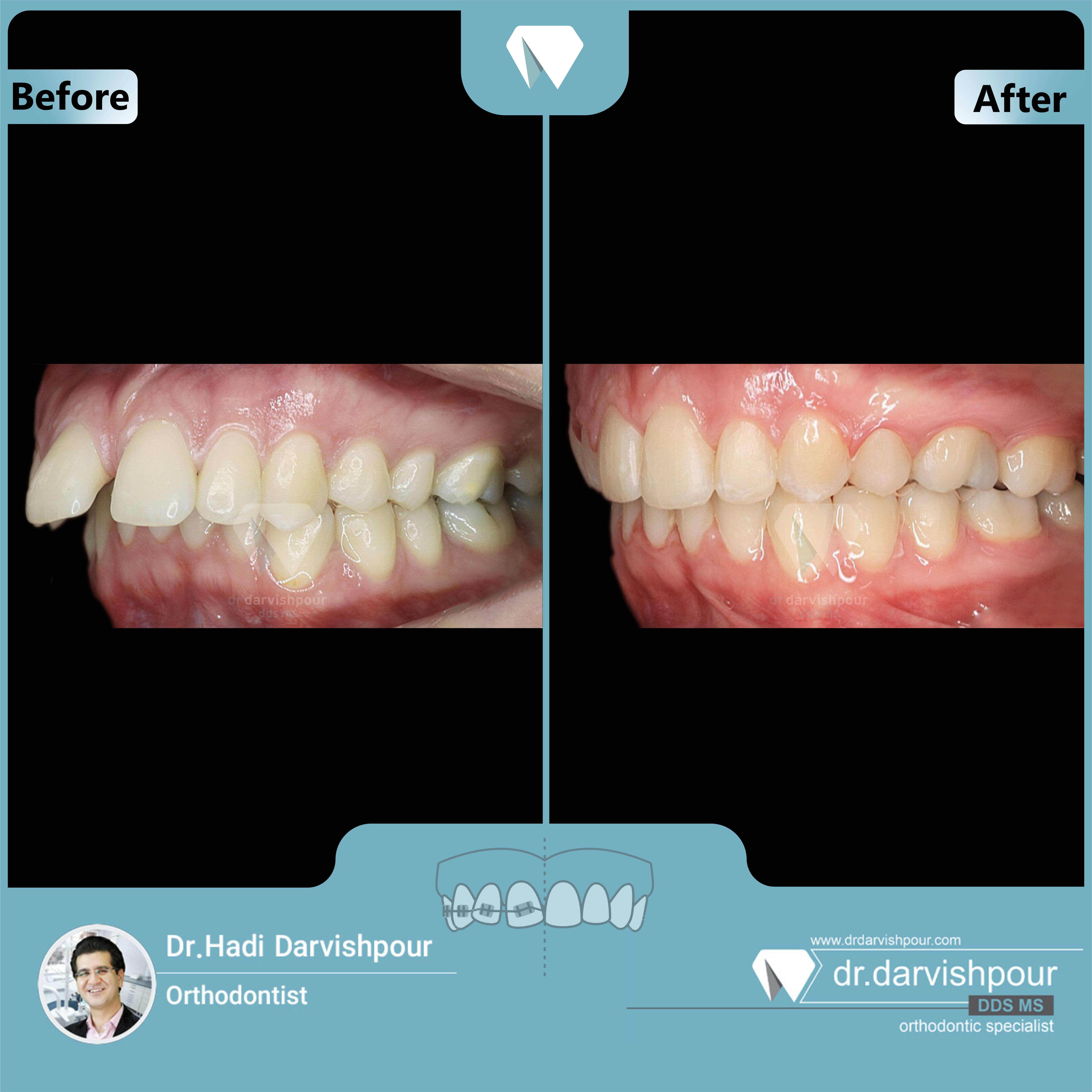 1714orthodontics-before-after-photo