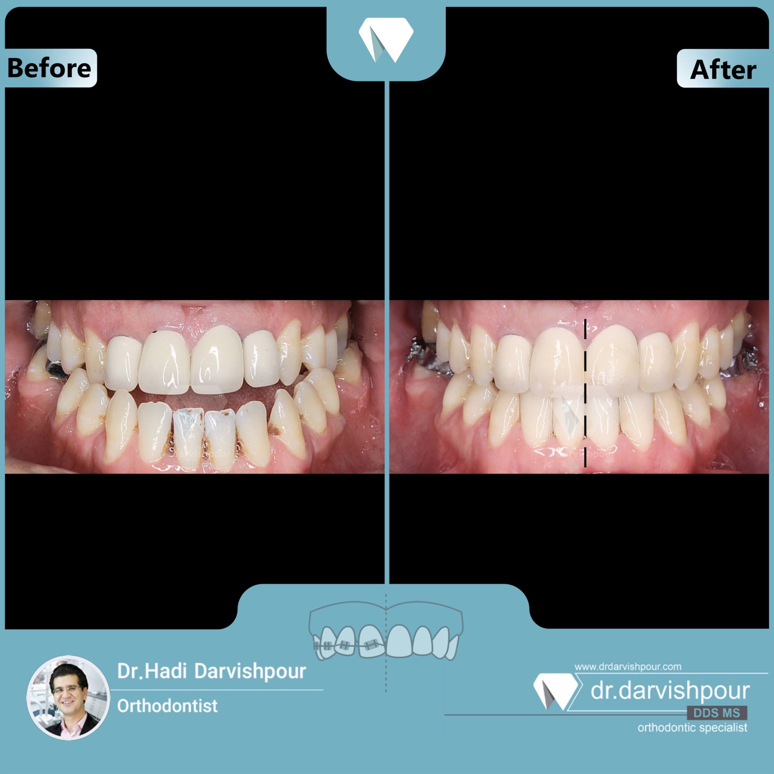 1717orthodontics-before-after-photo
