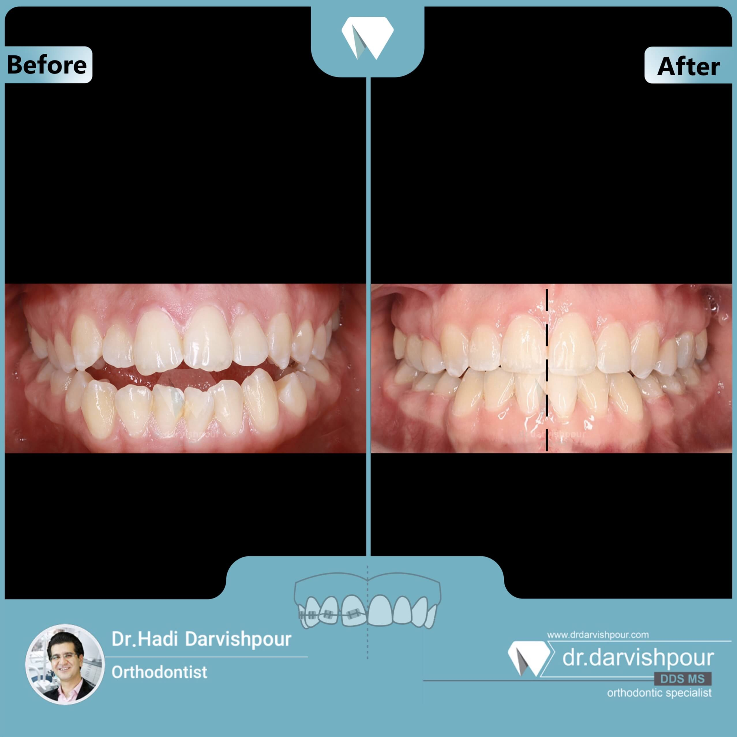 1720orthodontics-before-after-photo