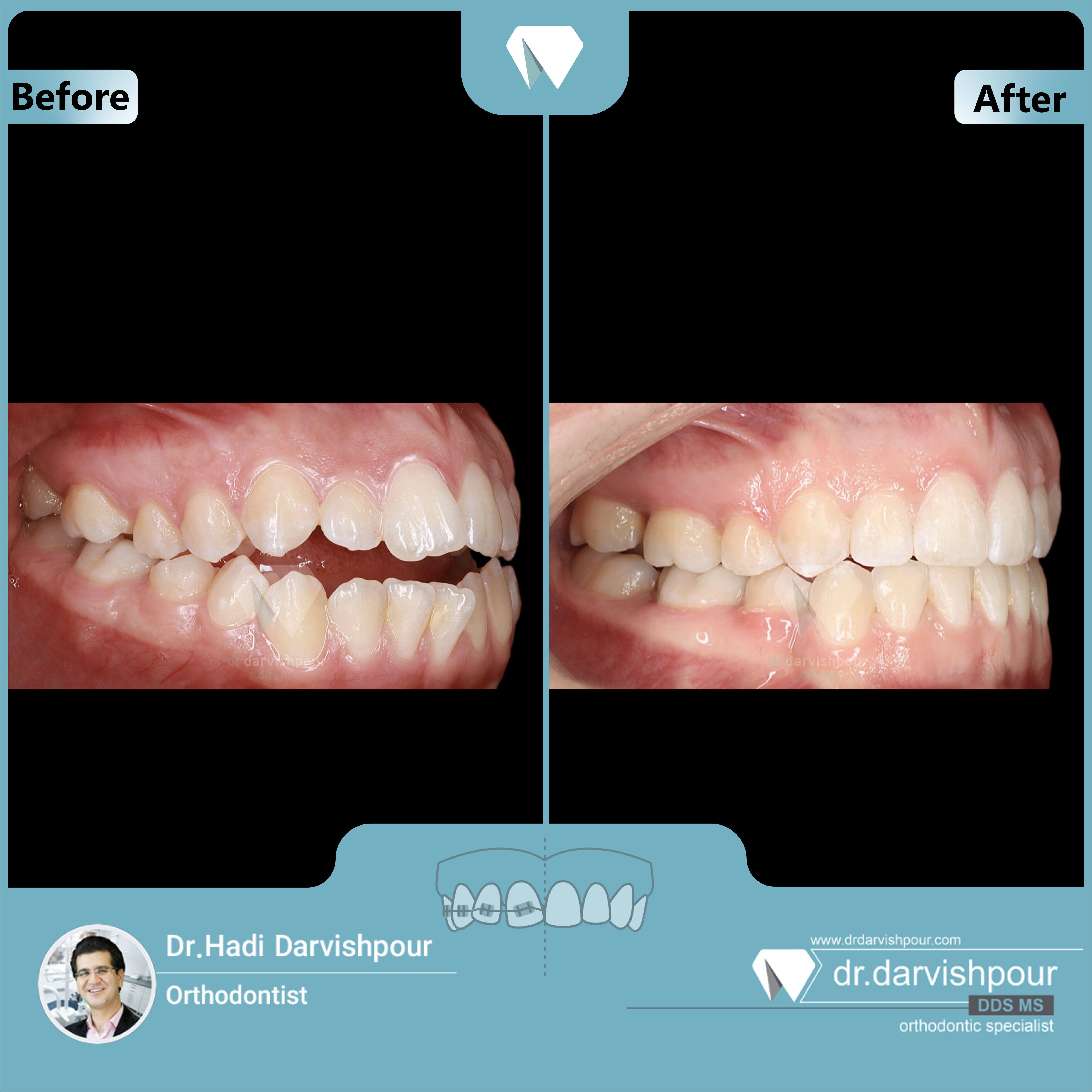 1721orthodontics-before-after-photo