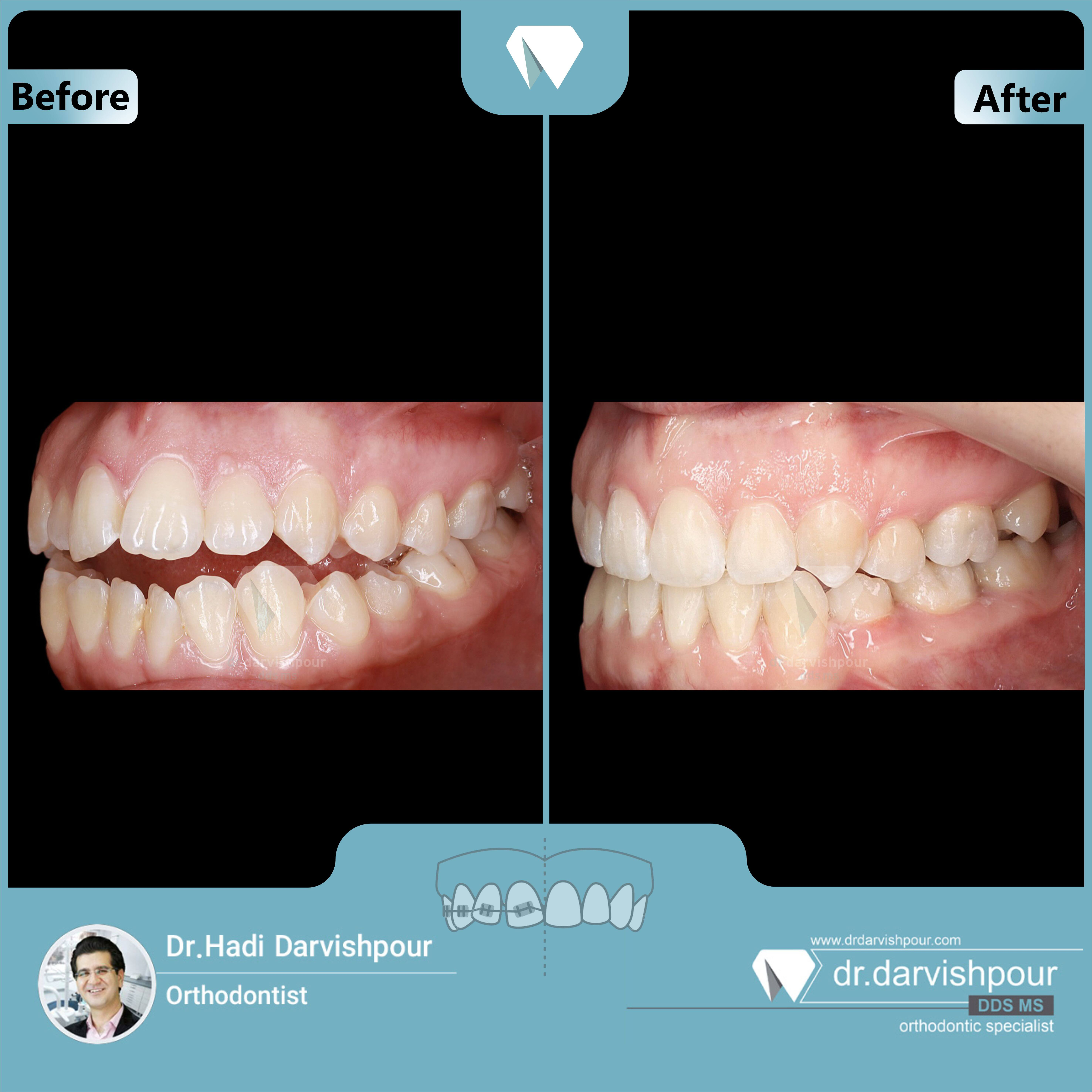 1722orthodontics-before-after-photo