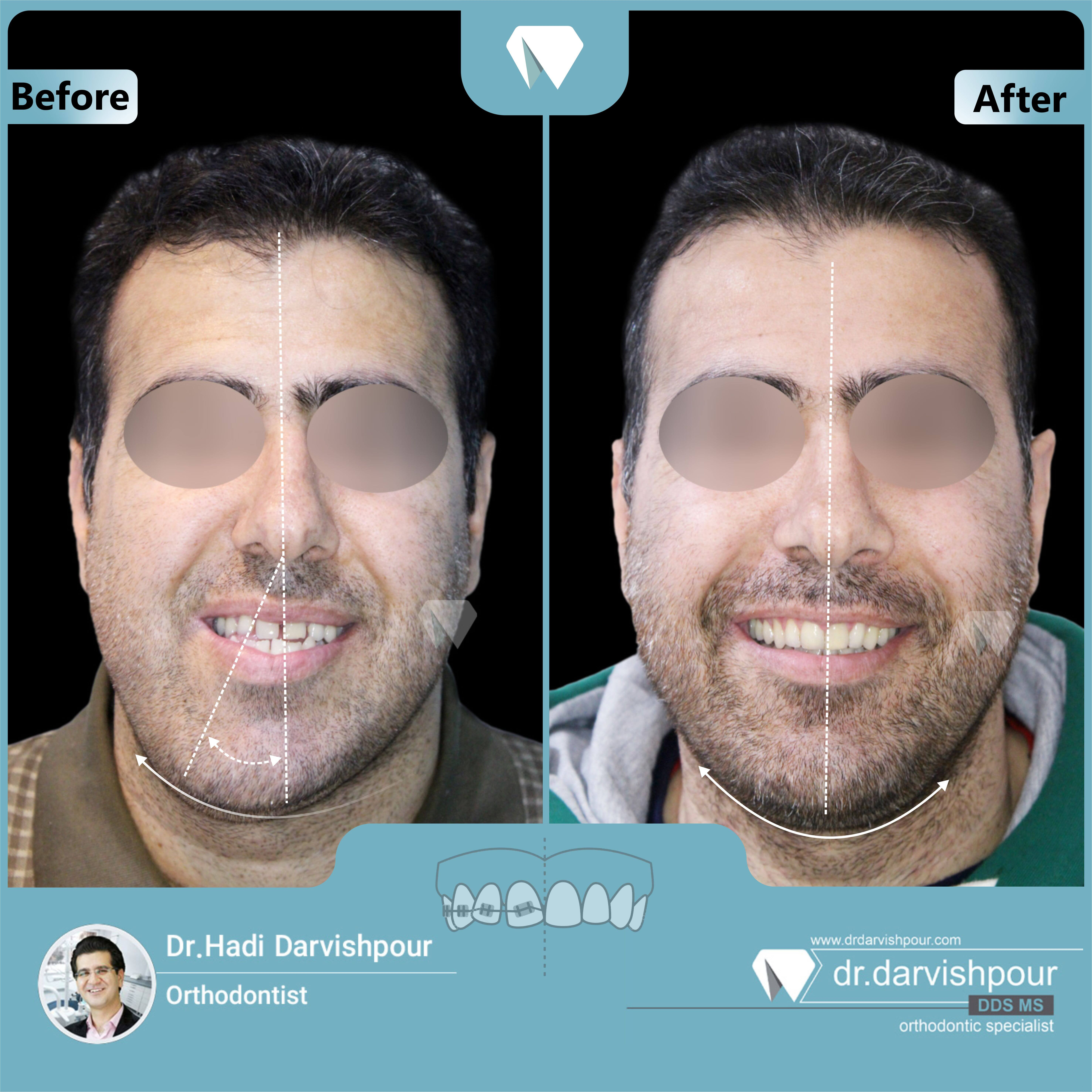 1724orthodontics-before-after-photo