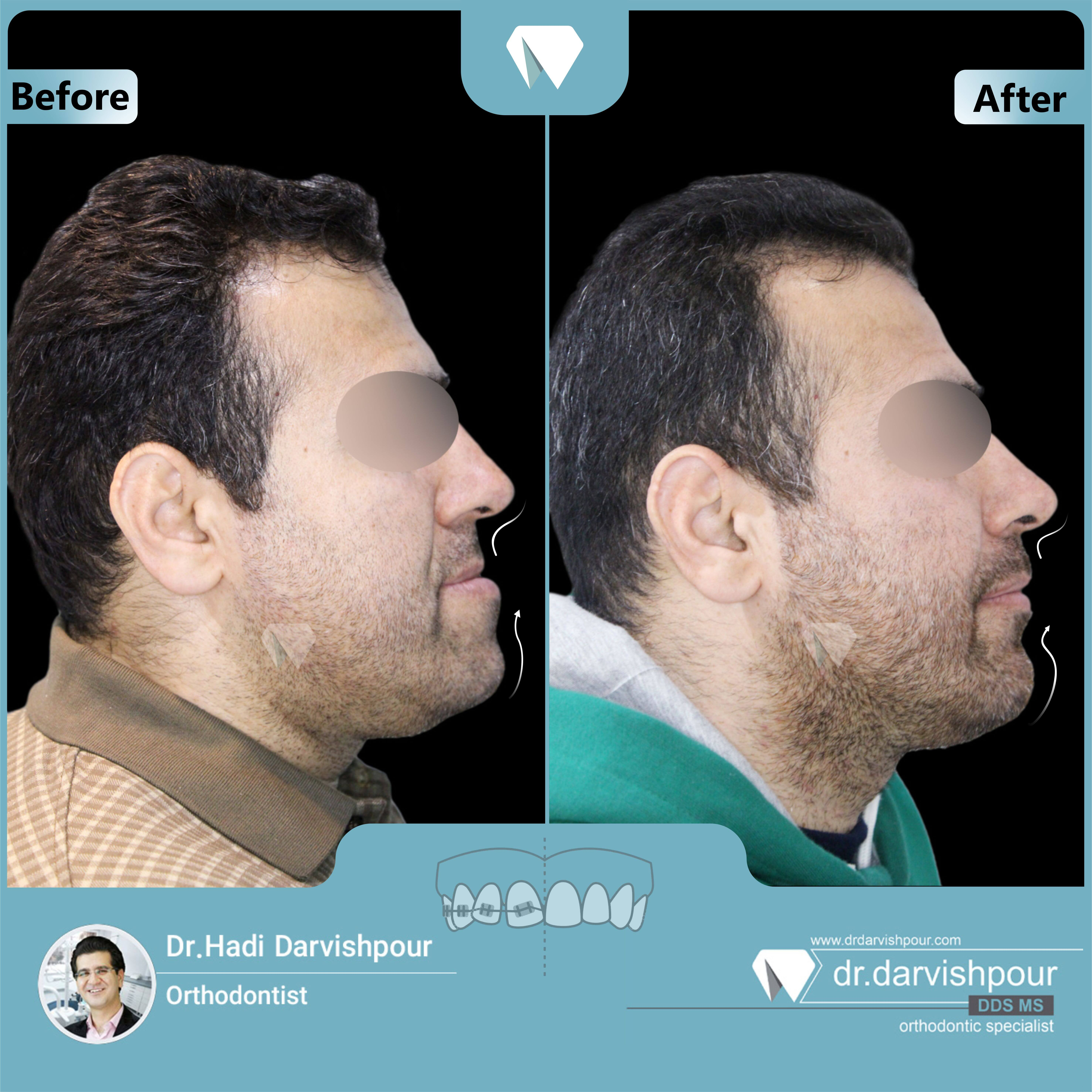 1725orthodontics-before-after-photo