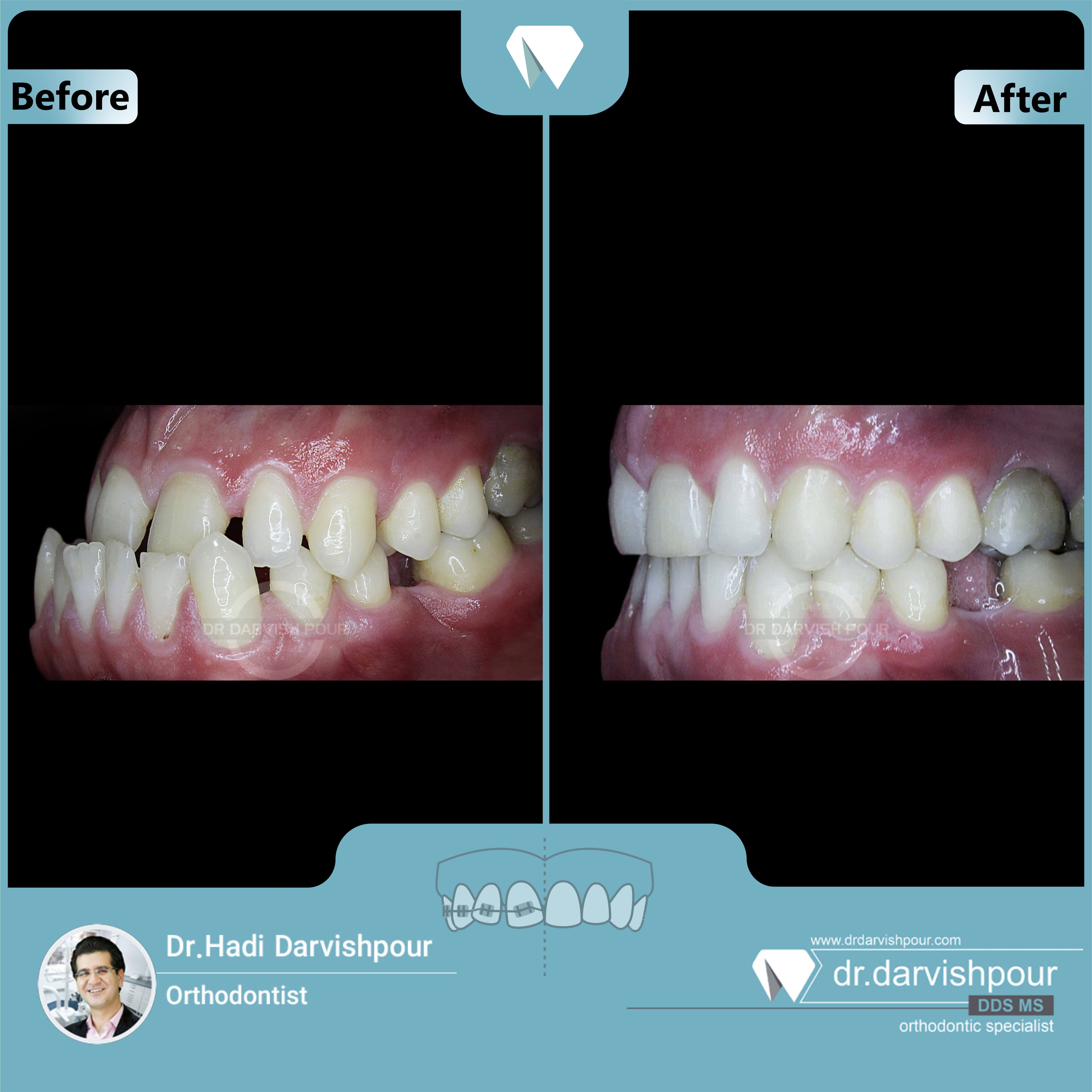 1727orthodontics-before-after-photo