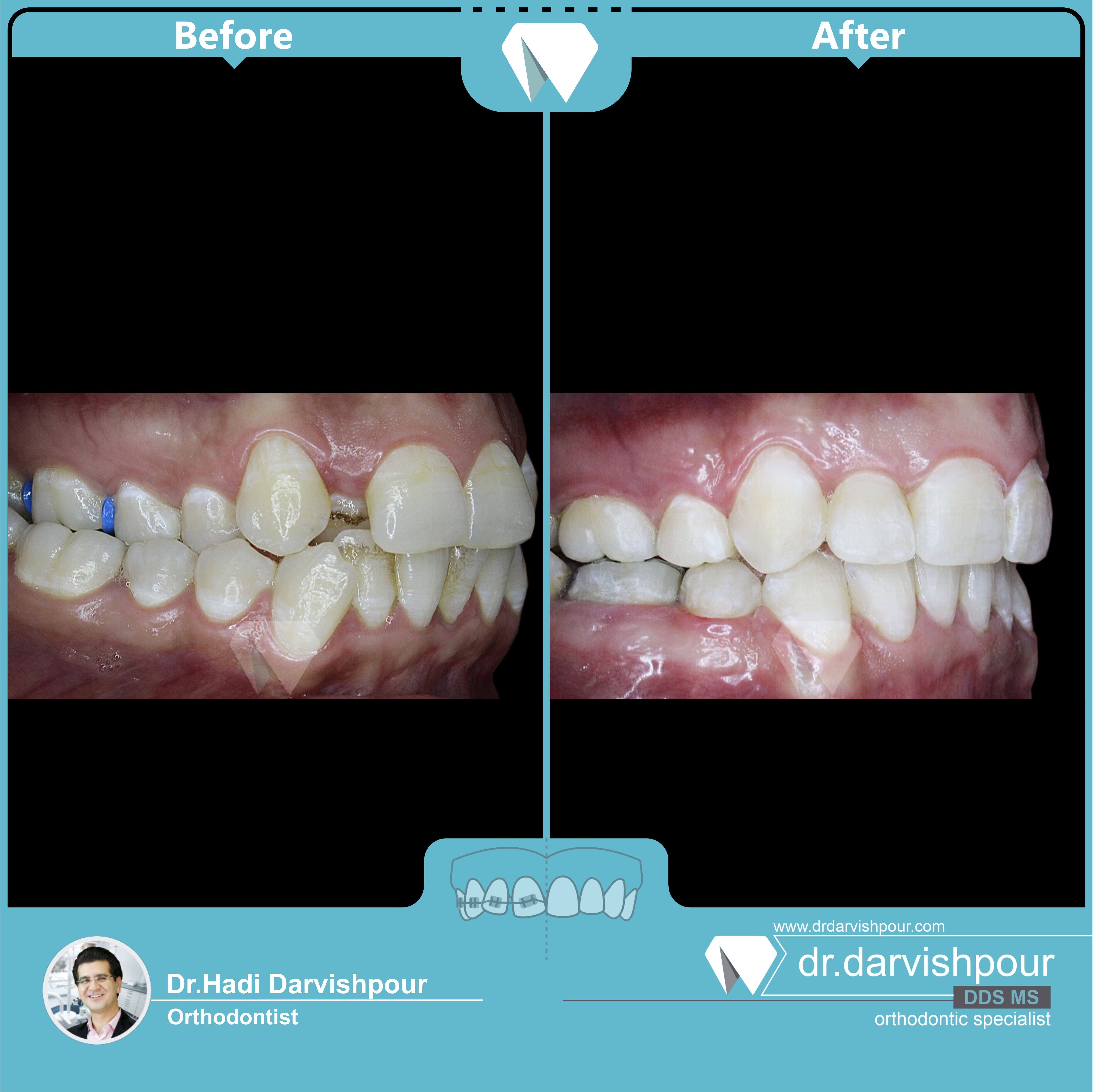 1730orthodontics-before-after-photo