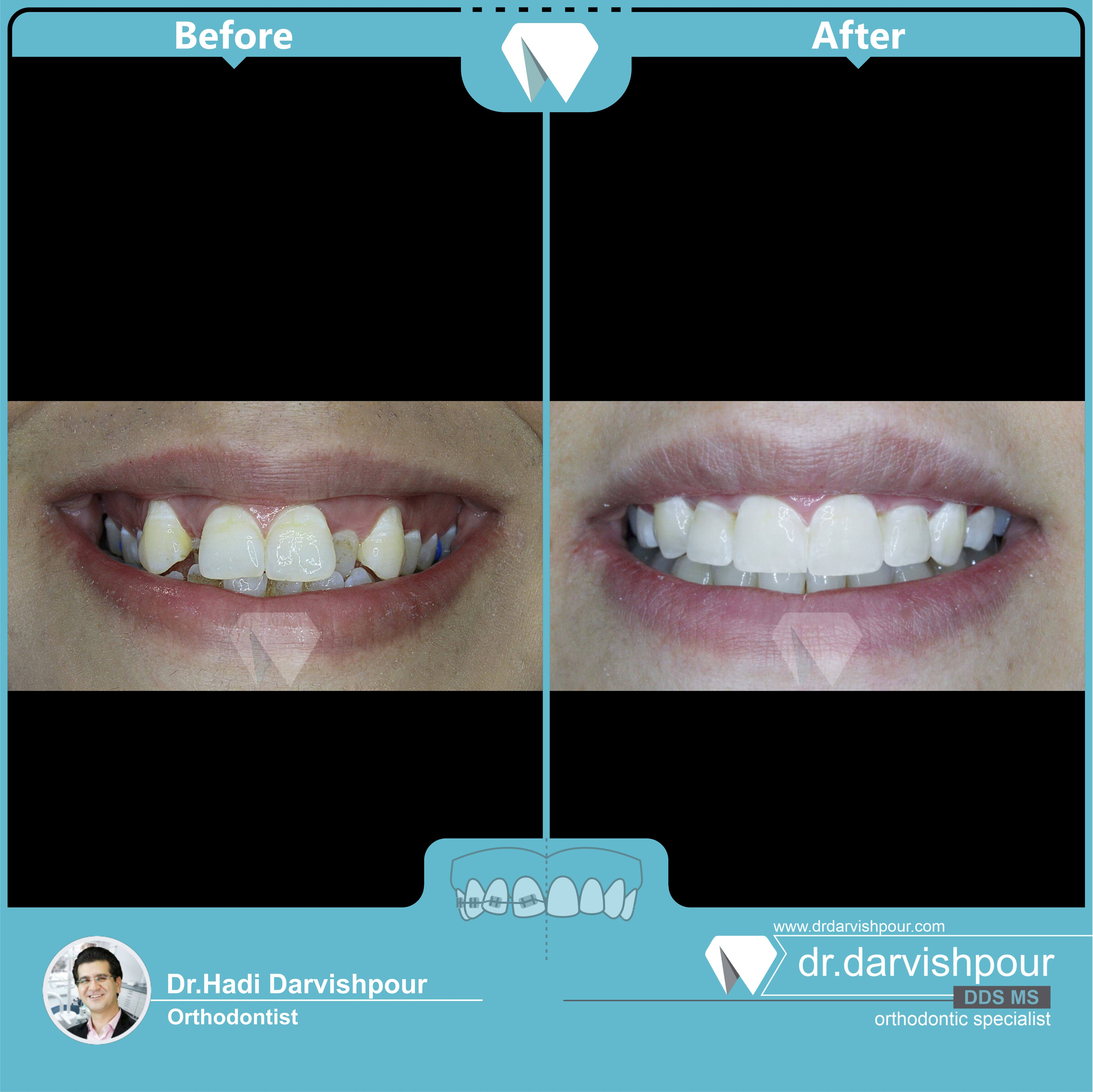 1732orthodontics-before-after-photo